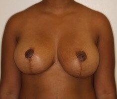 Vertical Scar Breast Reduction Six Weeks Postop