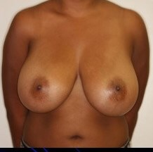 Vertical Scar Breast Reduction Before