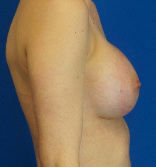 Breast Augmentation 340 ccs Six Weeks Postop