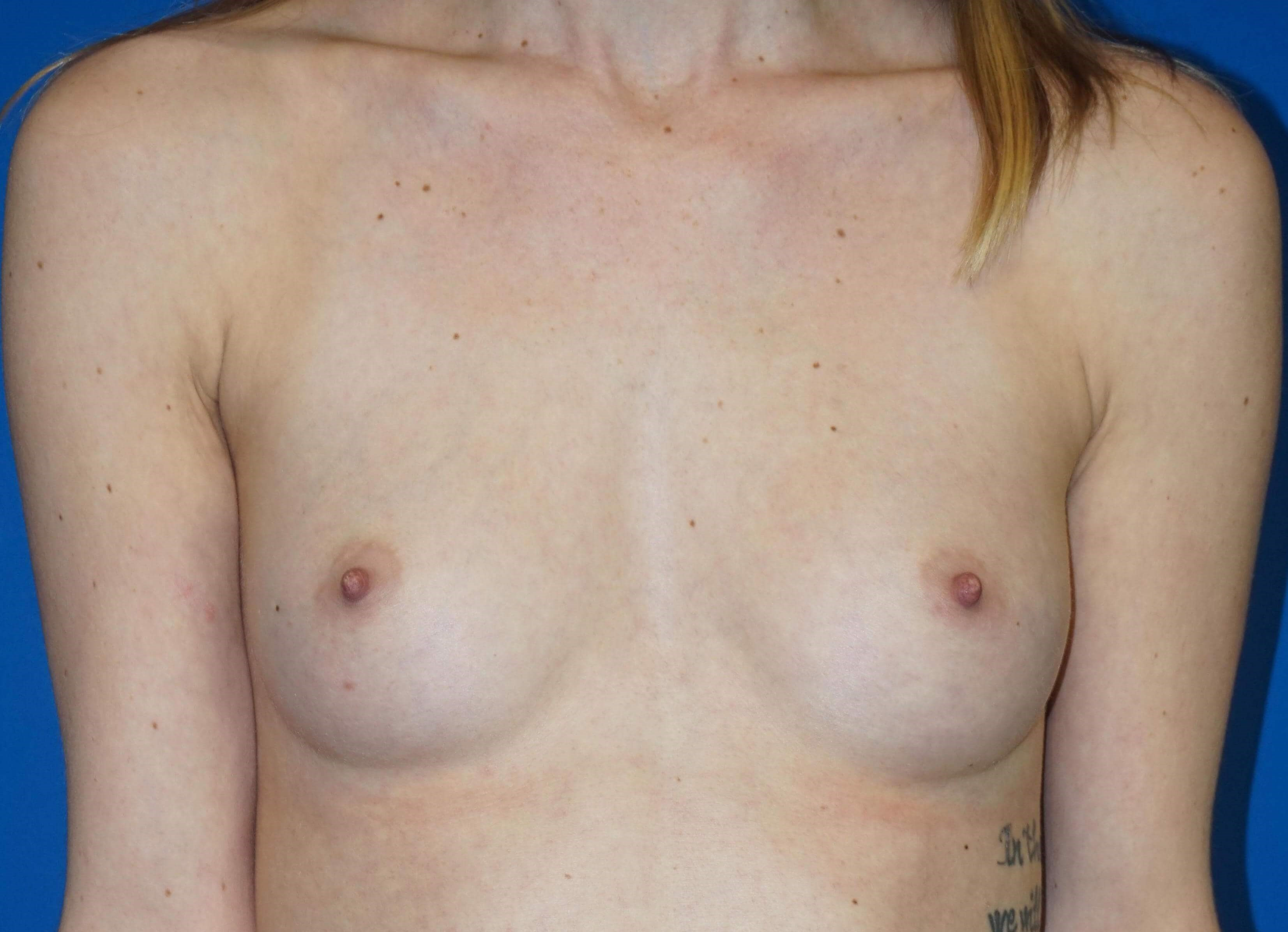 Breast Augmentation 340 ccs Before