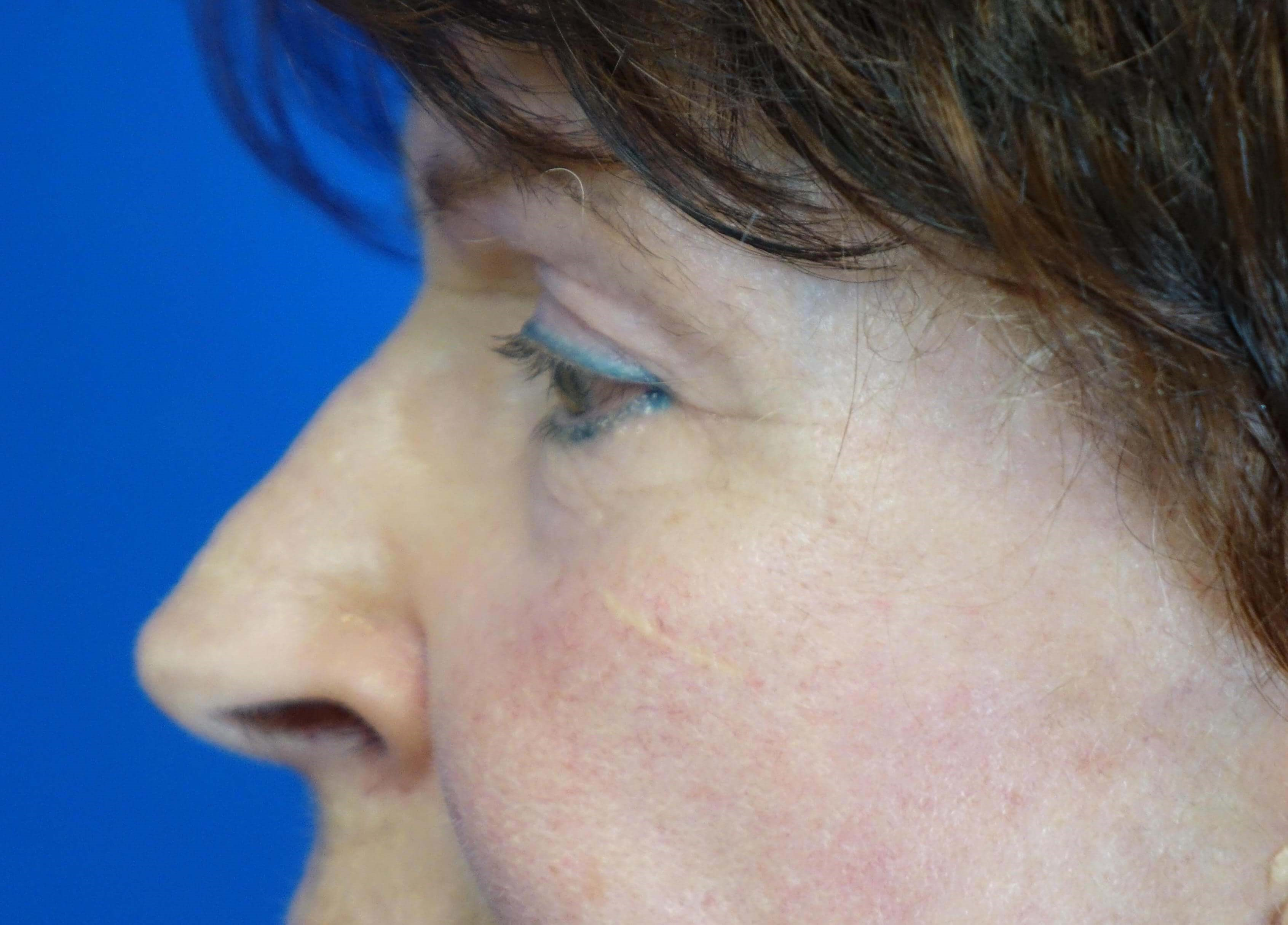 Lower Blepharoplasties After