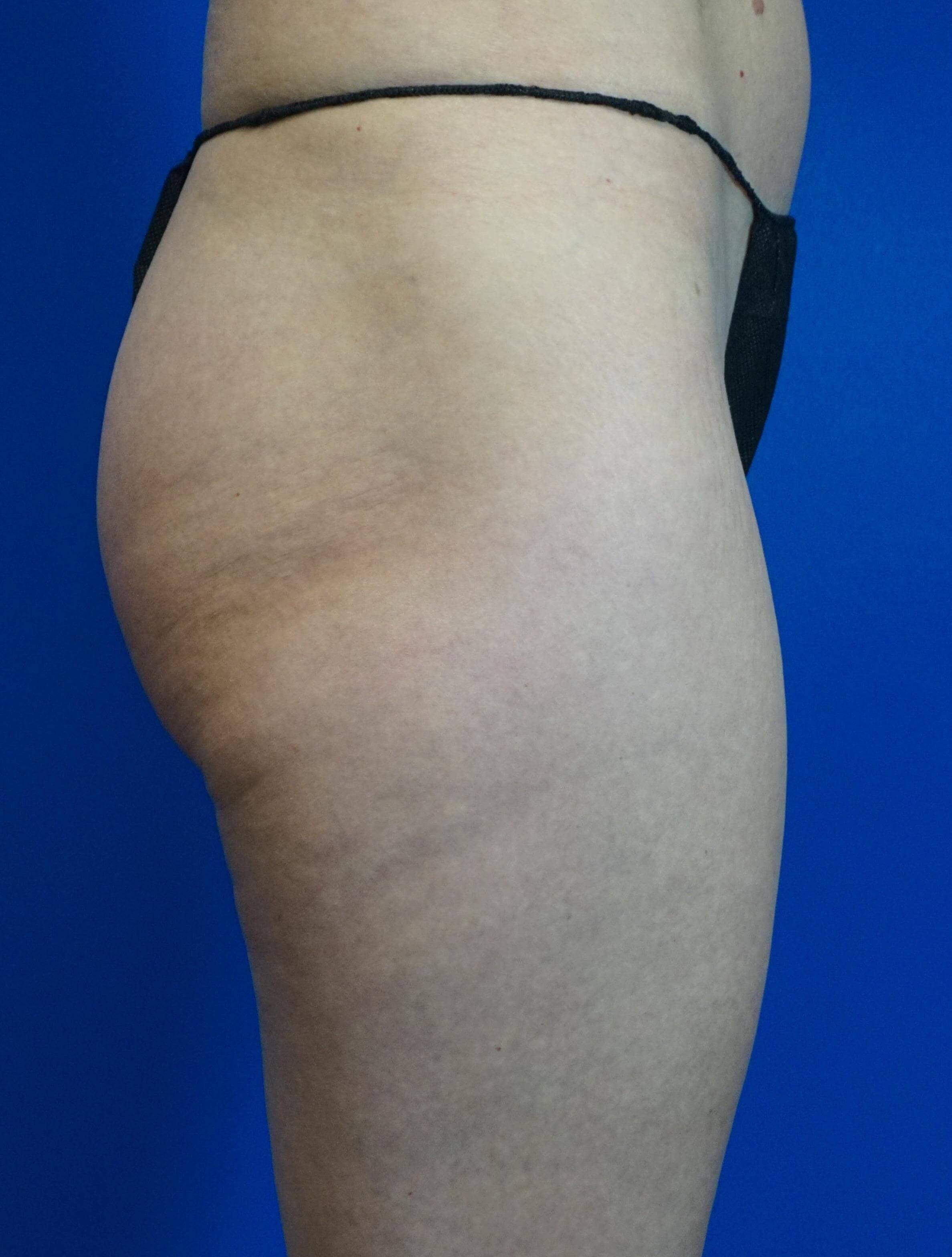 Laser Liposuction of Thighs Before