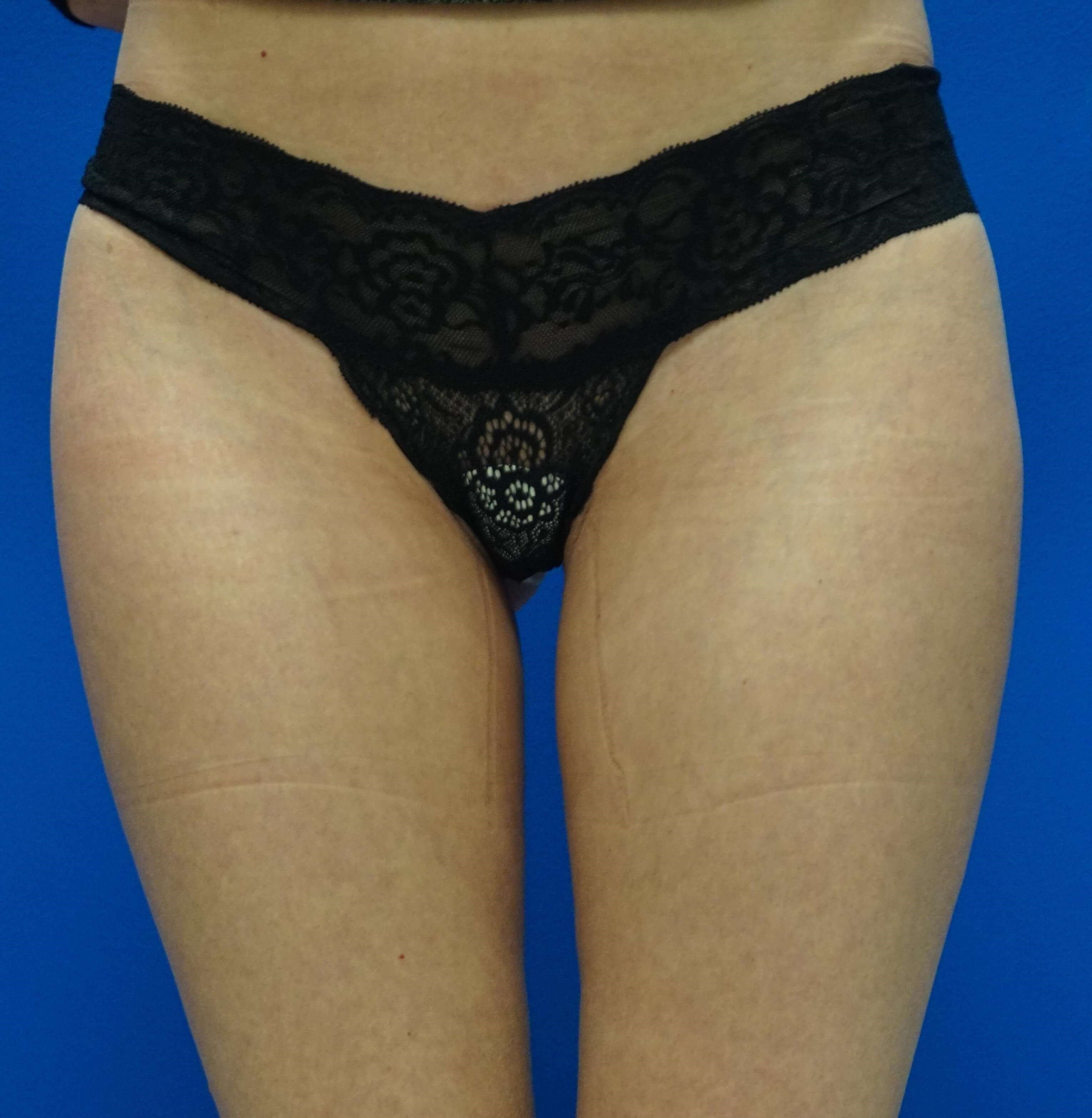 Laser Liposuction of the Outer Thighs and Banana Roll