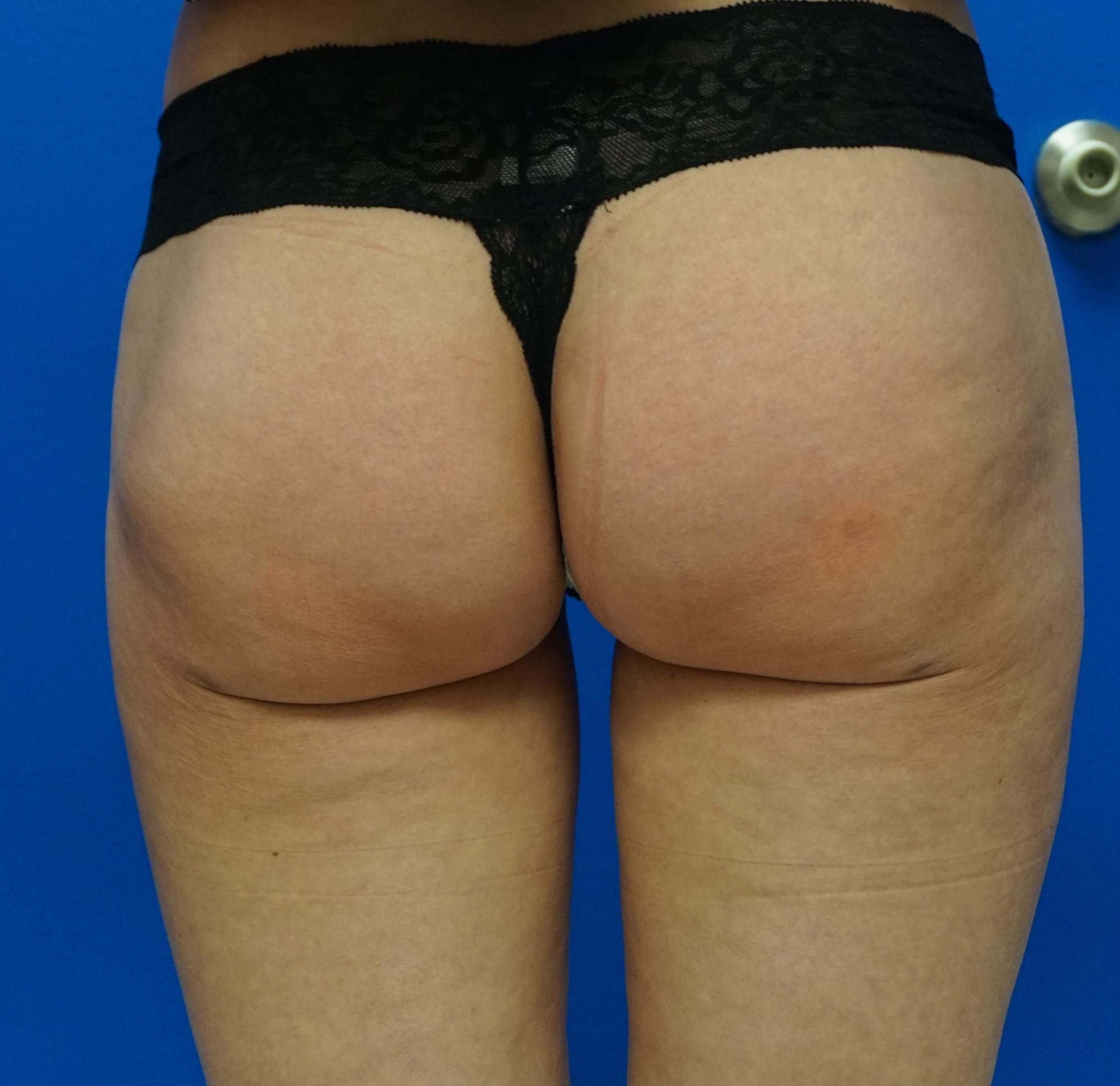 Laser Liposuction of Thighs 5 weeks post