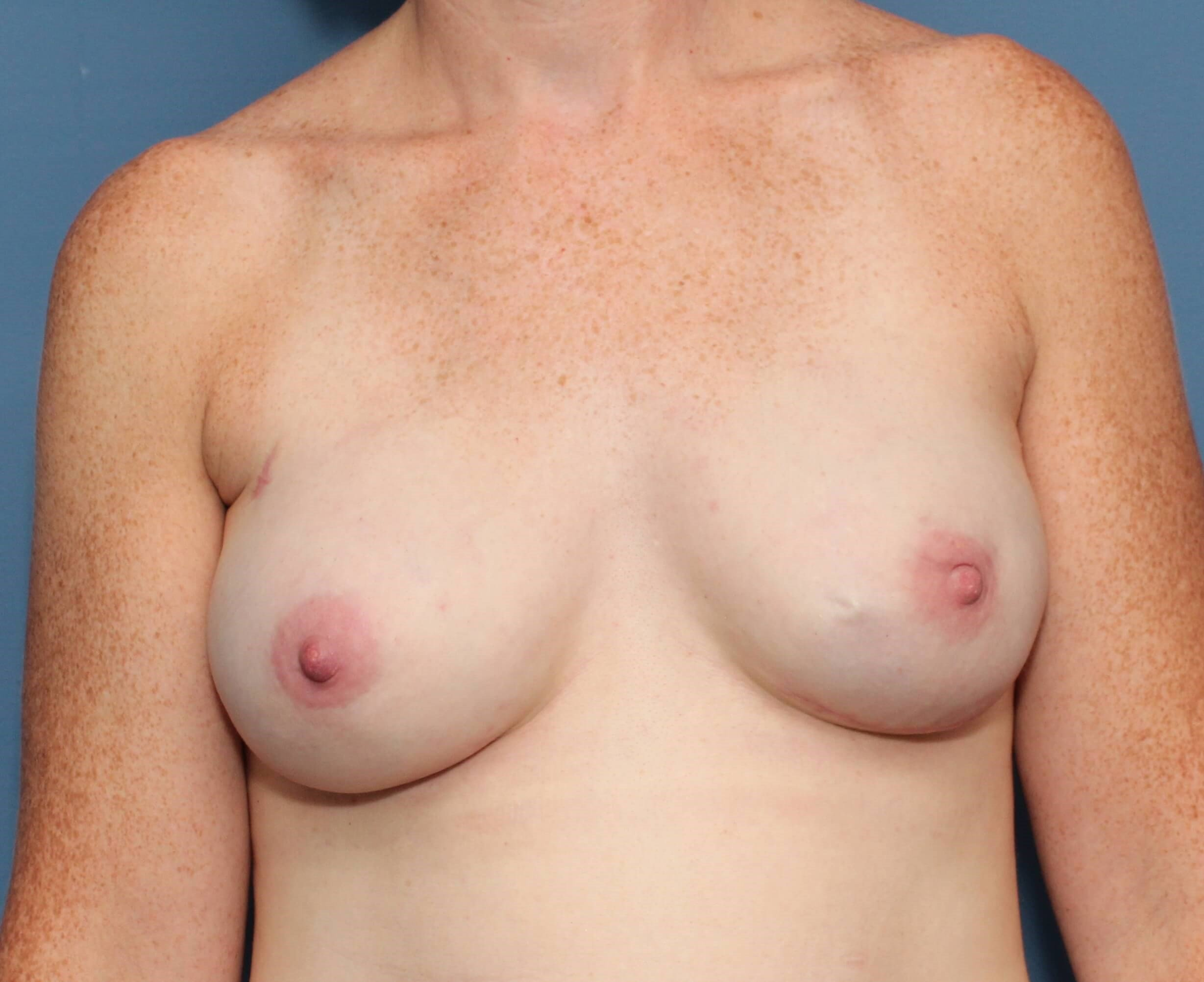 OneStage Breast Reconstruction 3 months postop