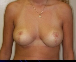 Vertical Scar Breast Reduction 6 months postop