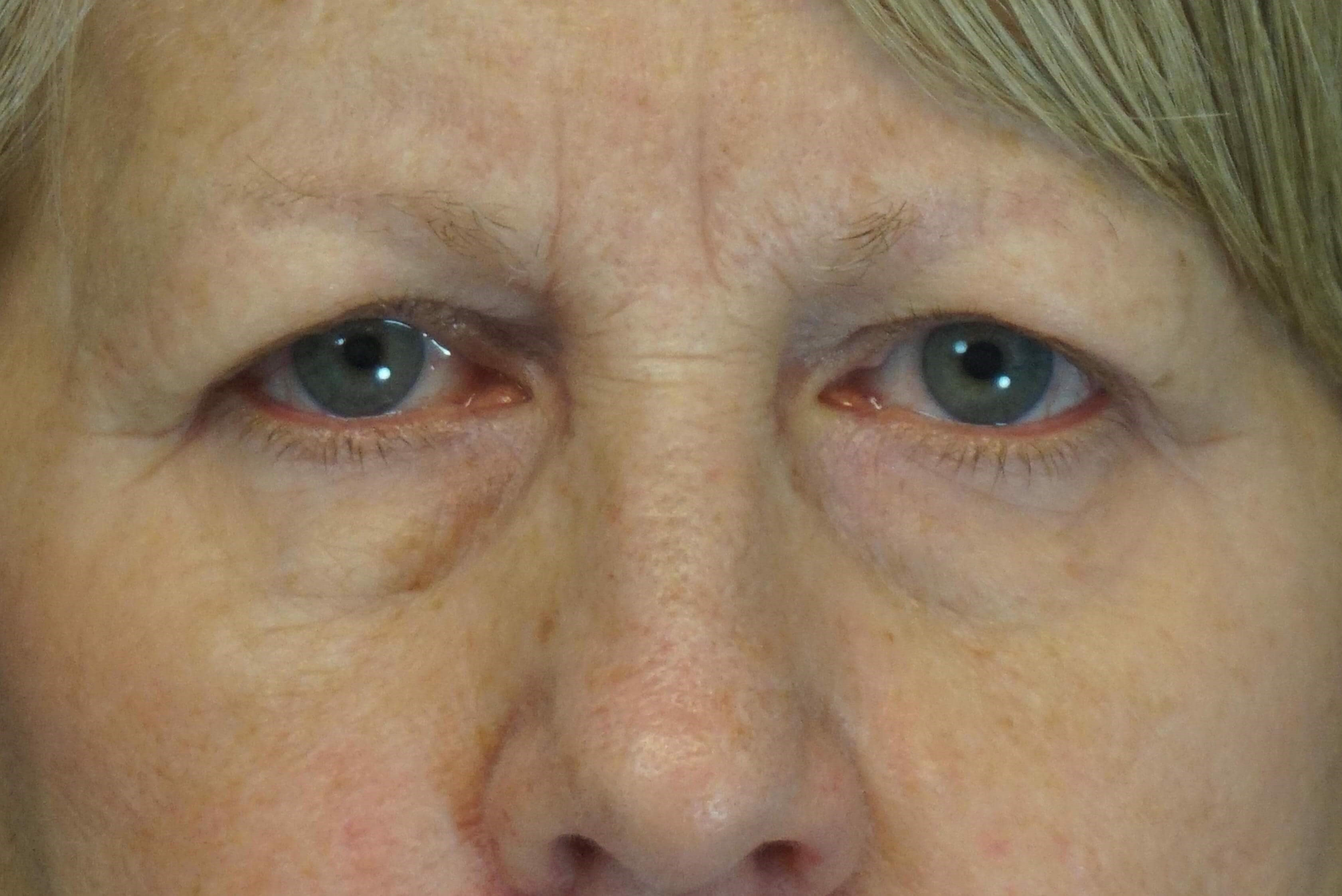 Upper Blepharoplasties Before
