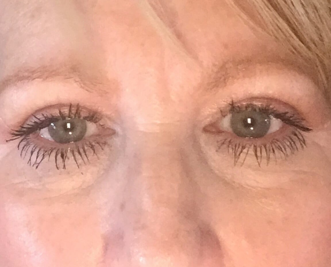 Upper Blepharoplasties 2 weeks postop