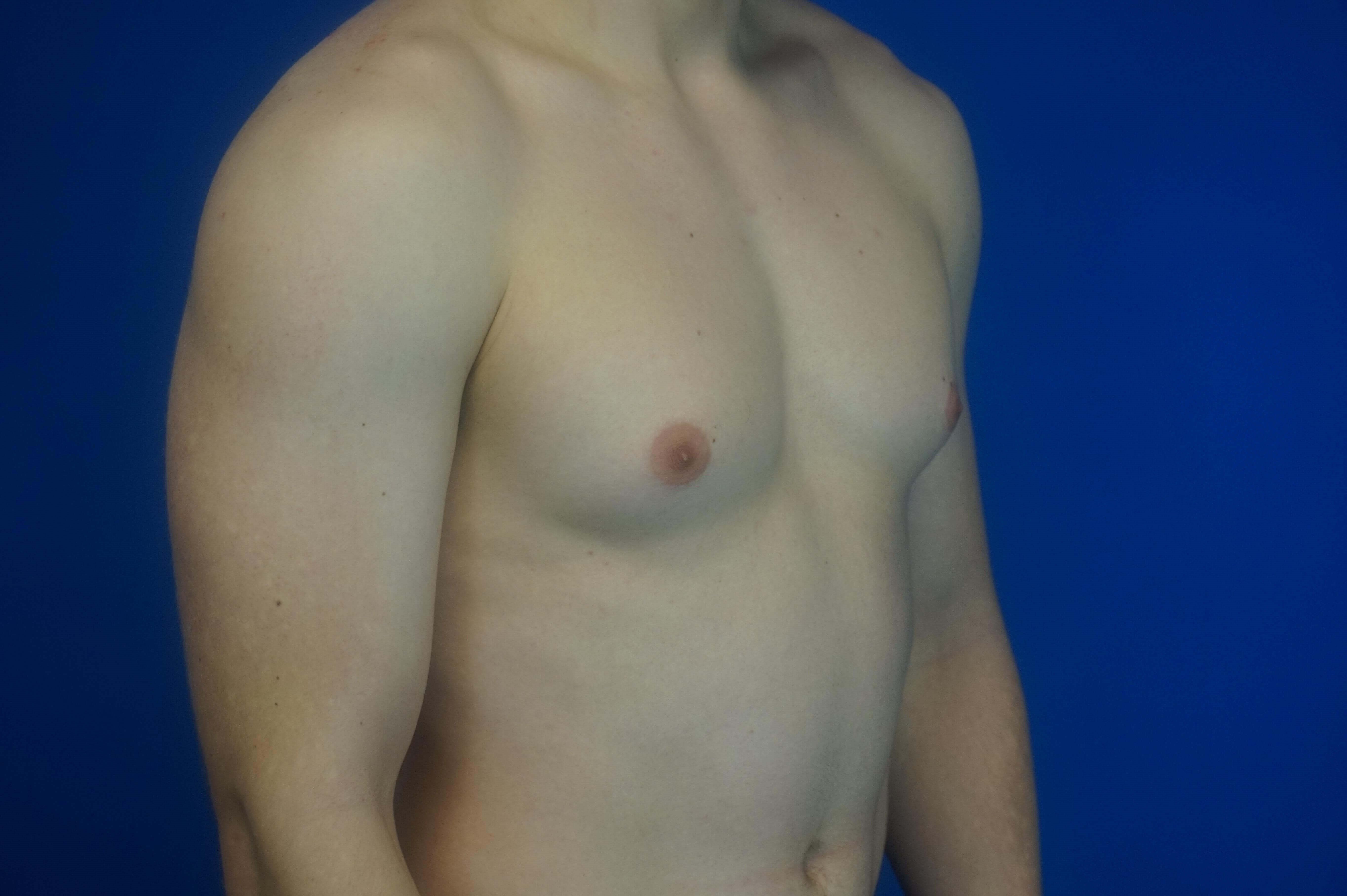 Excision of Gynecomastia Before
