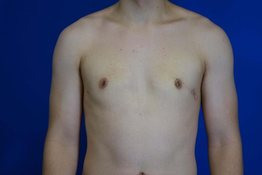 Excision of Gynecomastia 4 weeks after