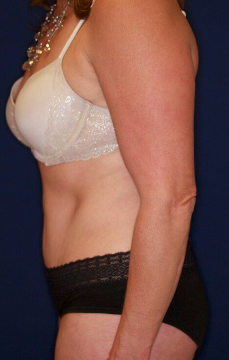 Tummy Tuck Lateral View 3