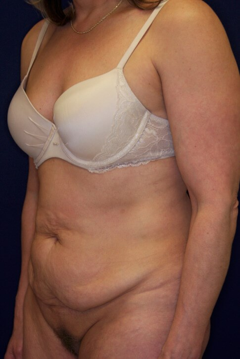 Tummy Tuck Oblique View Before