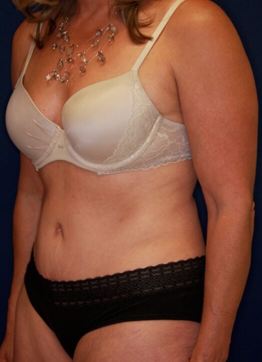 Tummy Tuck Oblique View 3