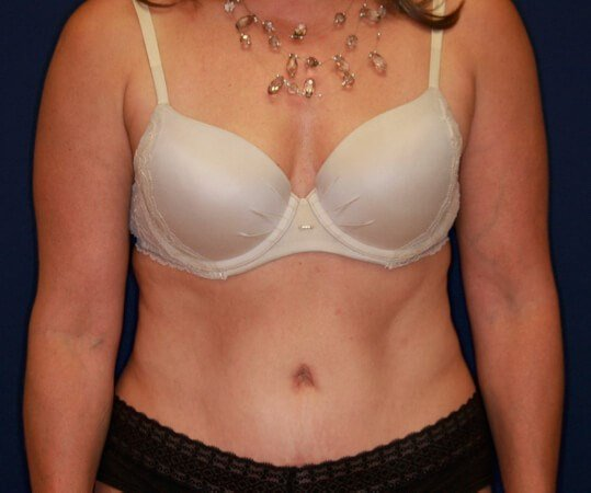 Tummy Tuck Front View 3 months postop