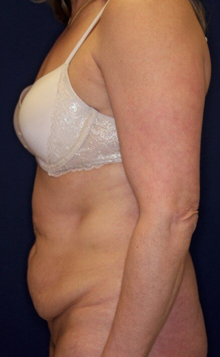 Tummy Tuck Lateral View Before