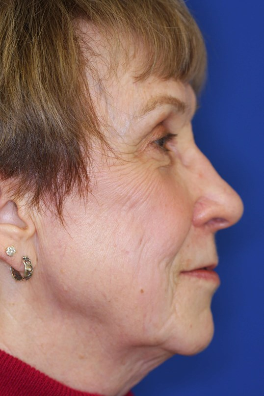 Fractional CO2 Laser Resurface 3 months post-treatment