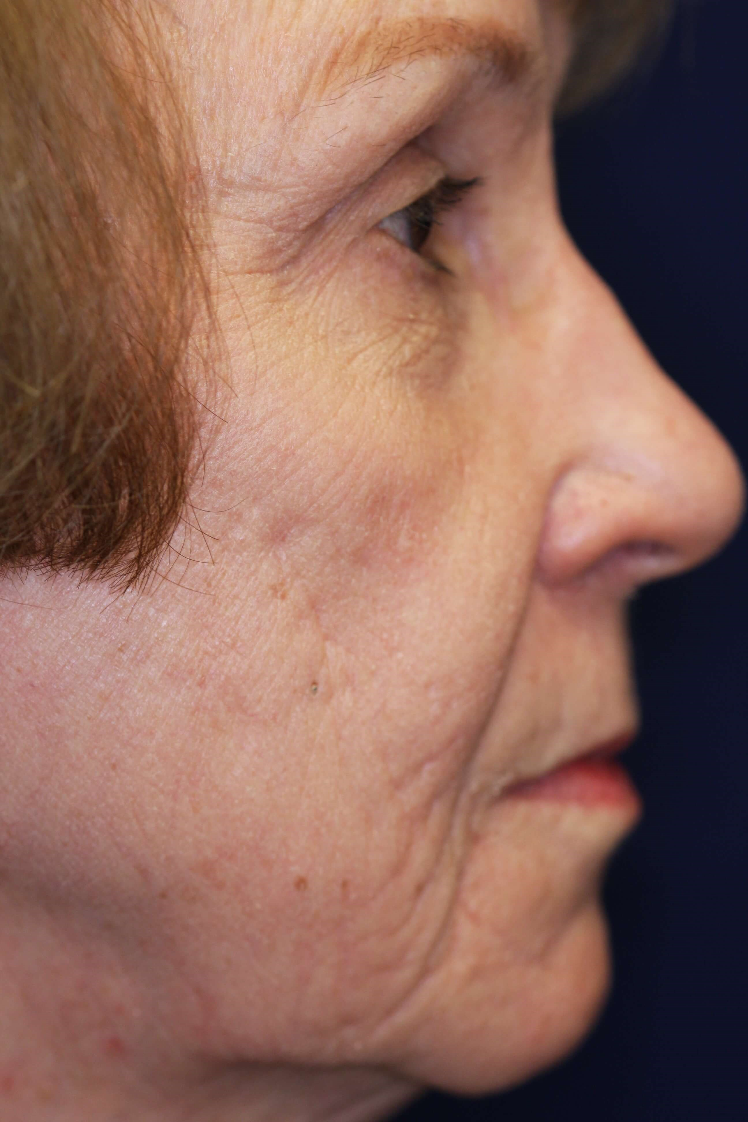 Fractional CO2 Laser Resurface Before