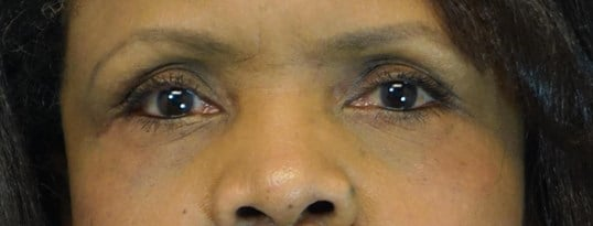 Lower Eyelid Blepharoplasties 1 year after