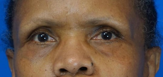 Lower Eyelid Blepharoplasties Before