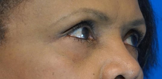 Lower Eyelid Blepharoplasties After