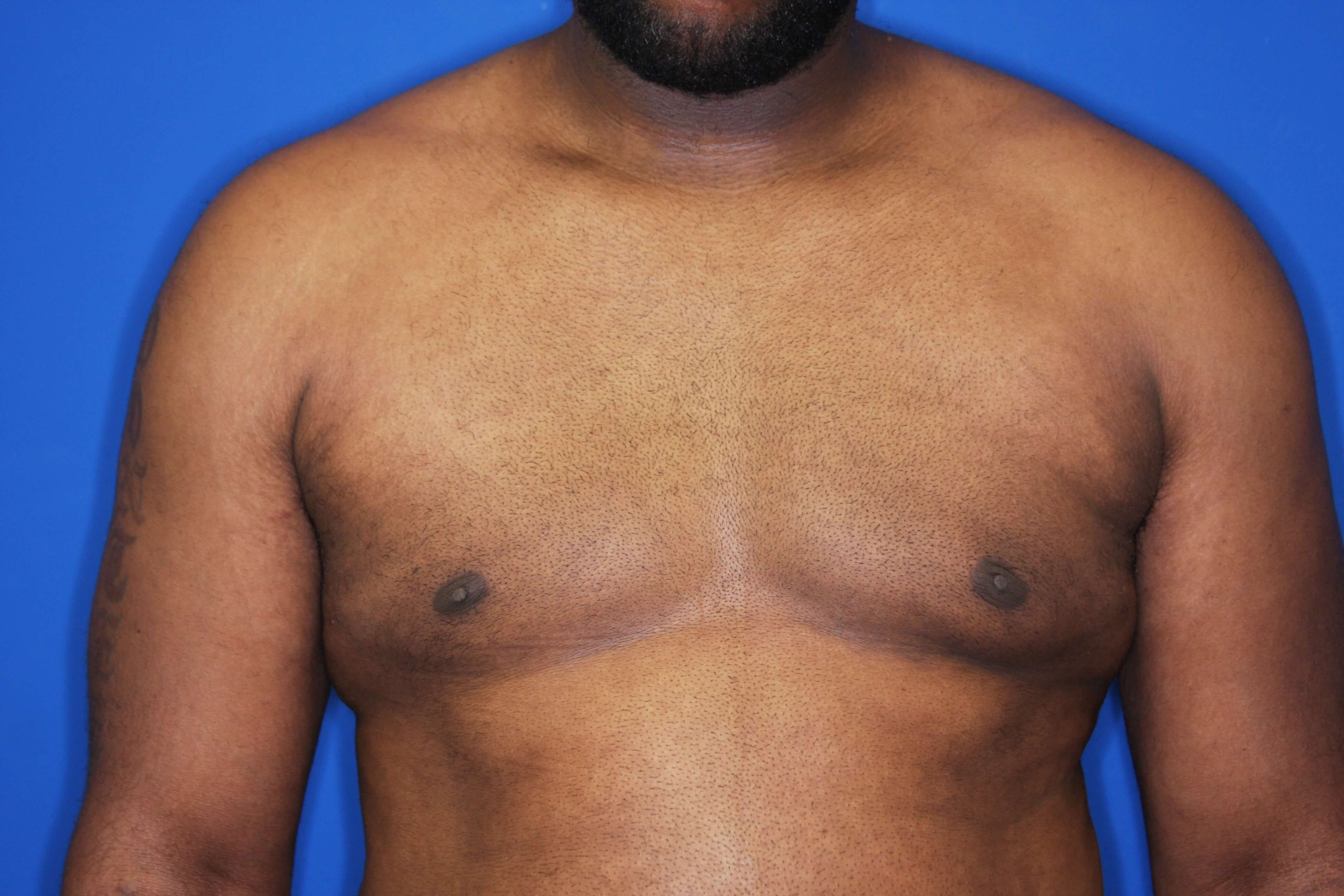 Gynecomastia Excision 4 weeks postop