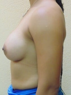 Breast Augmentation 3 months postop