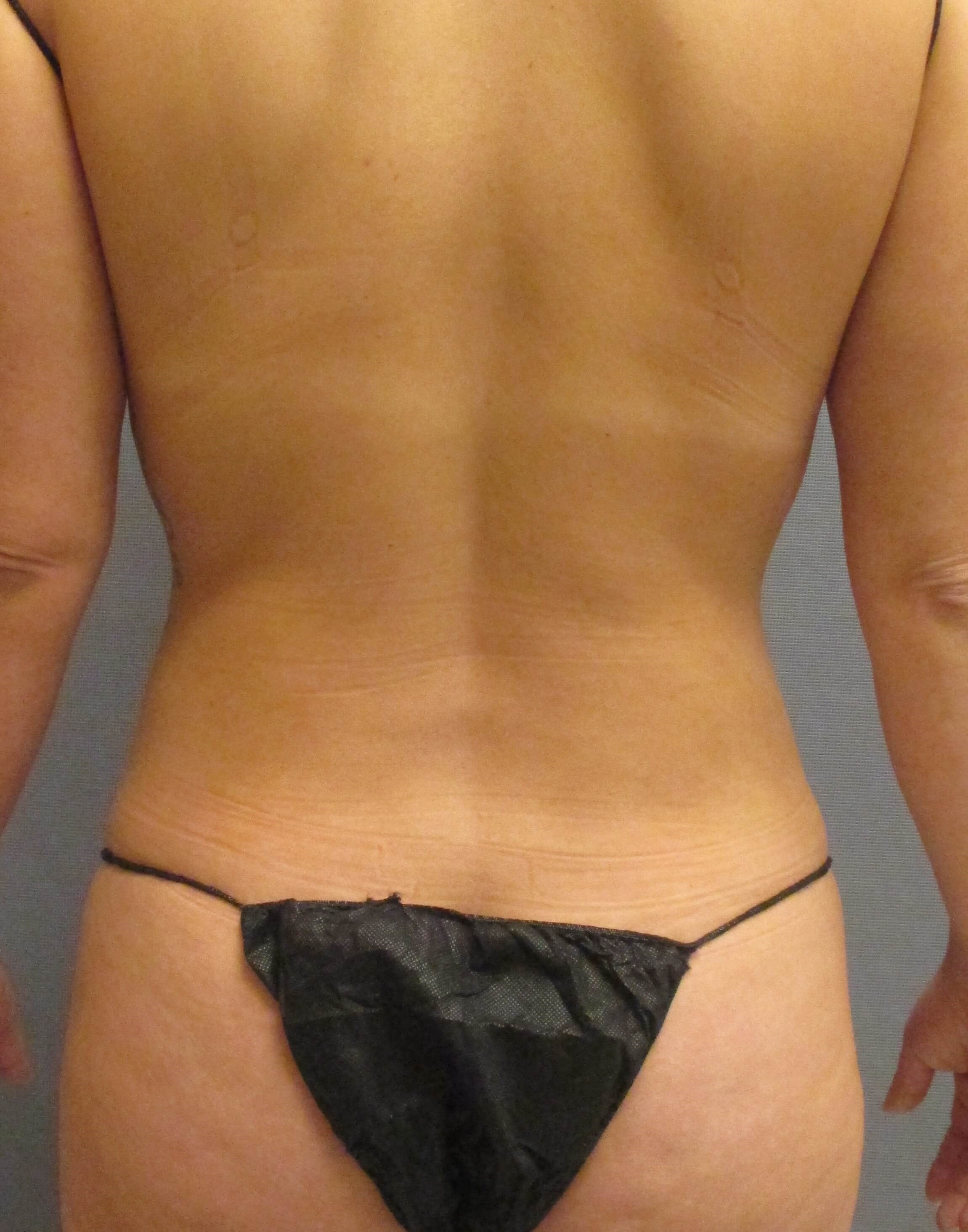 Liposuction of Abdomen & Waist 6 months postop