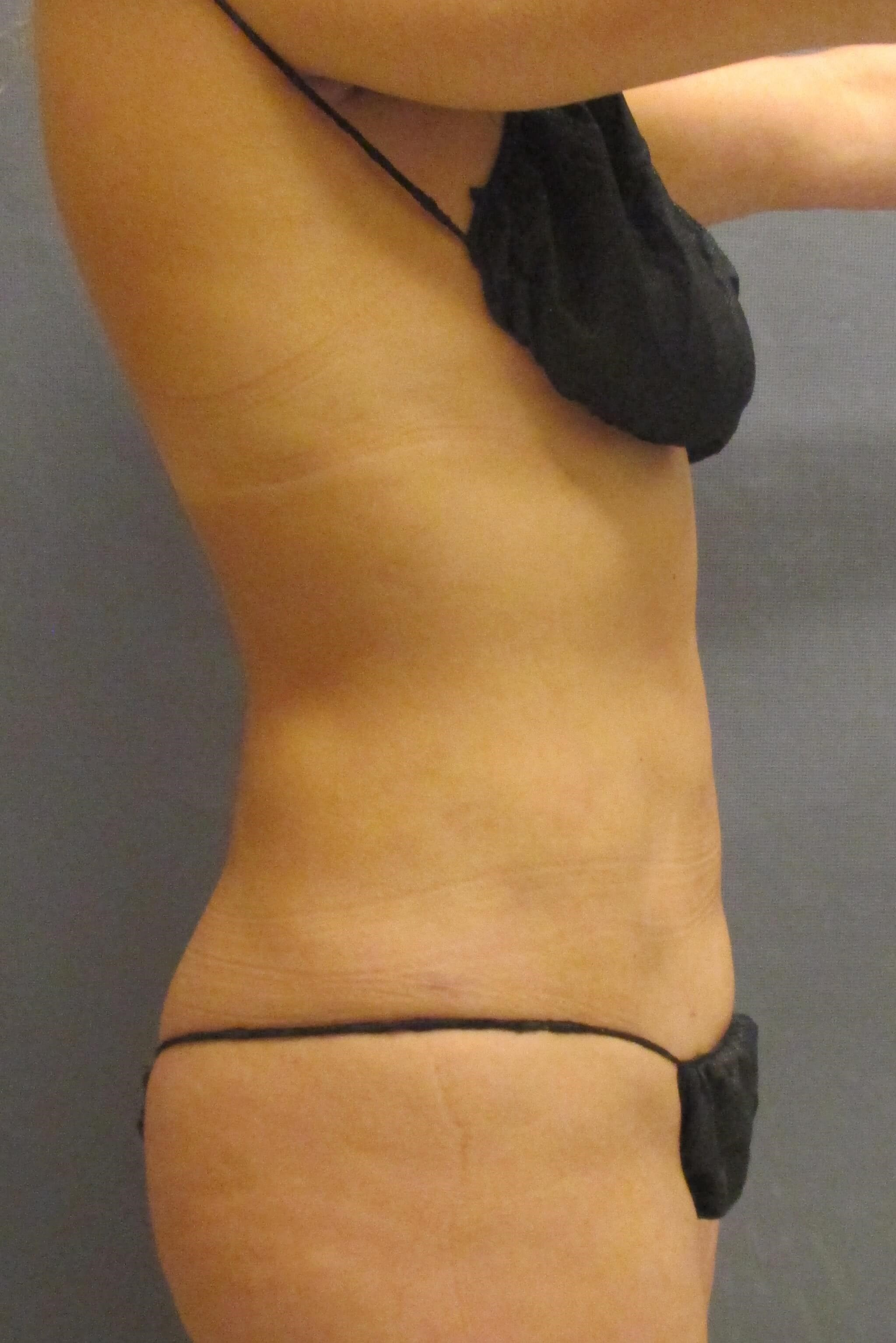 Liposuction of Abdomen & Waist 6 months post