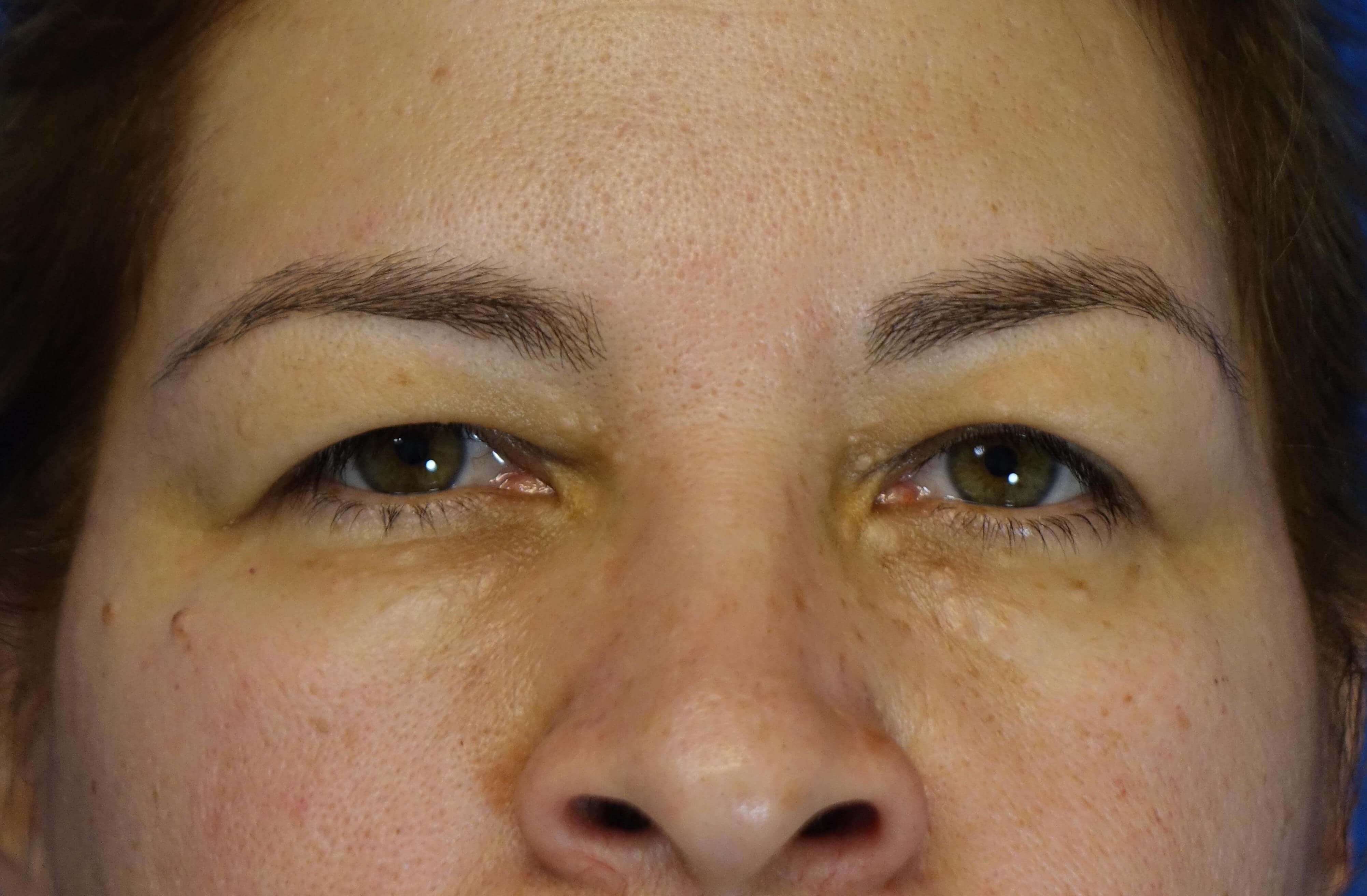 Upper Eyelid Blepharoplasties Before