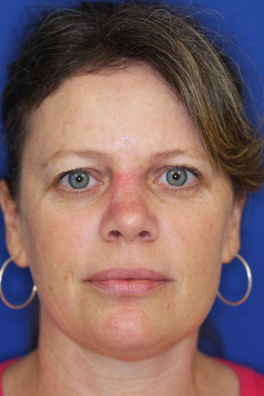 Before And After Skin Cancer Photos