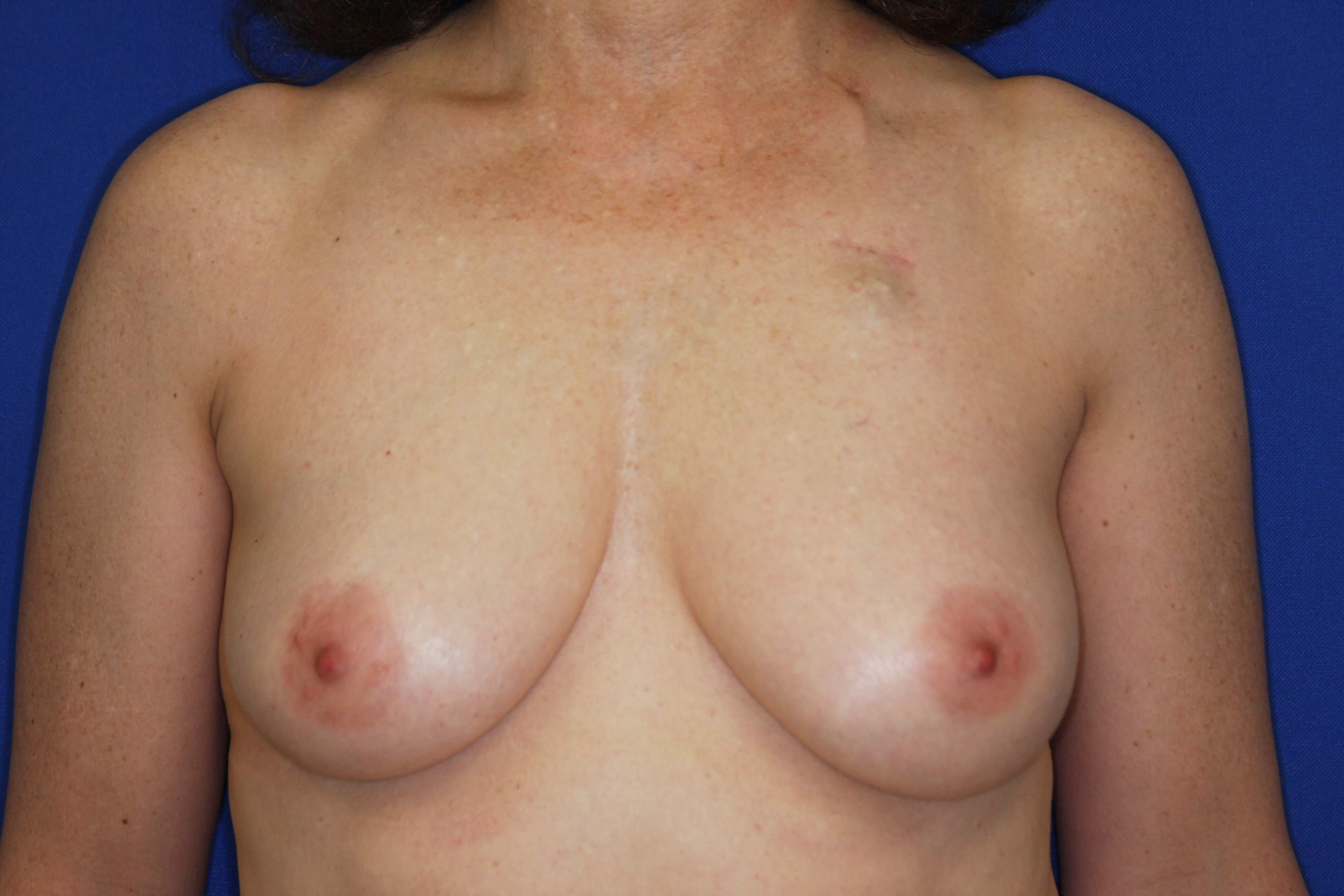 OneStage Breast Reconstruction Before
