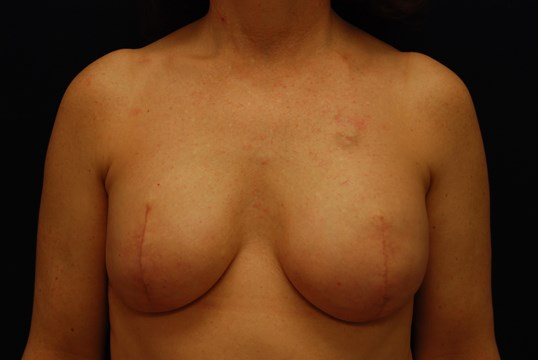 OneStage Breast Reconstruction 3 mo