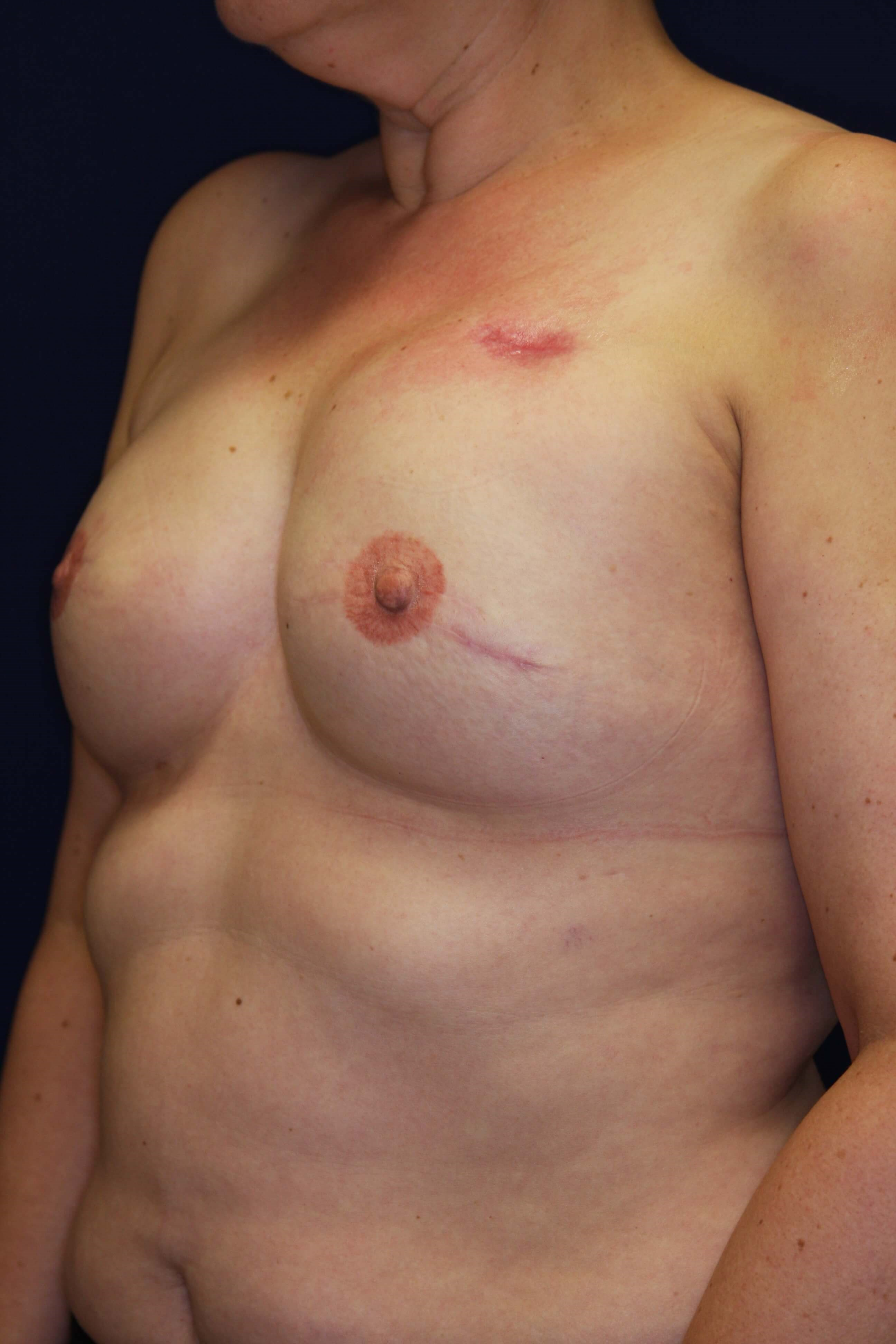 Expander Breast Reconstruction 3 m