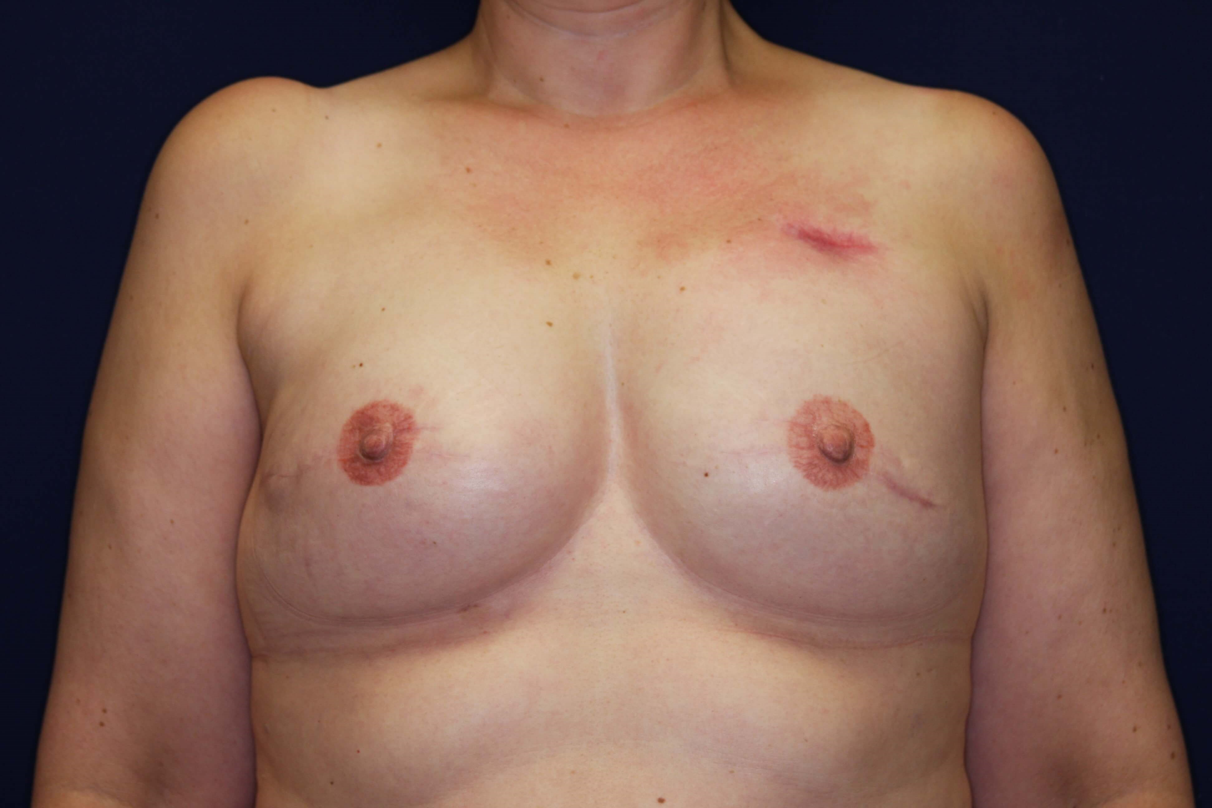 Expander Breast Reconstruction 3 months