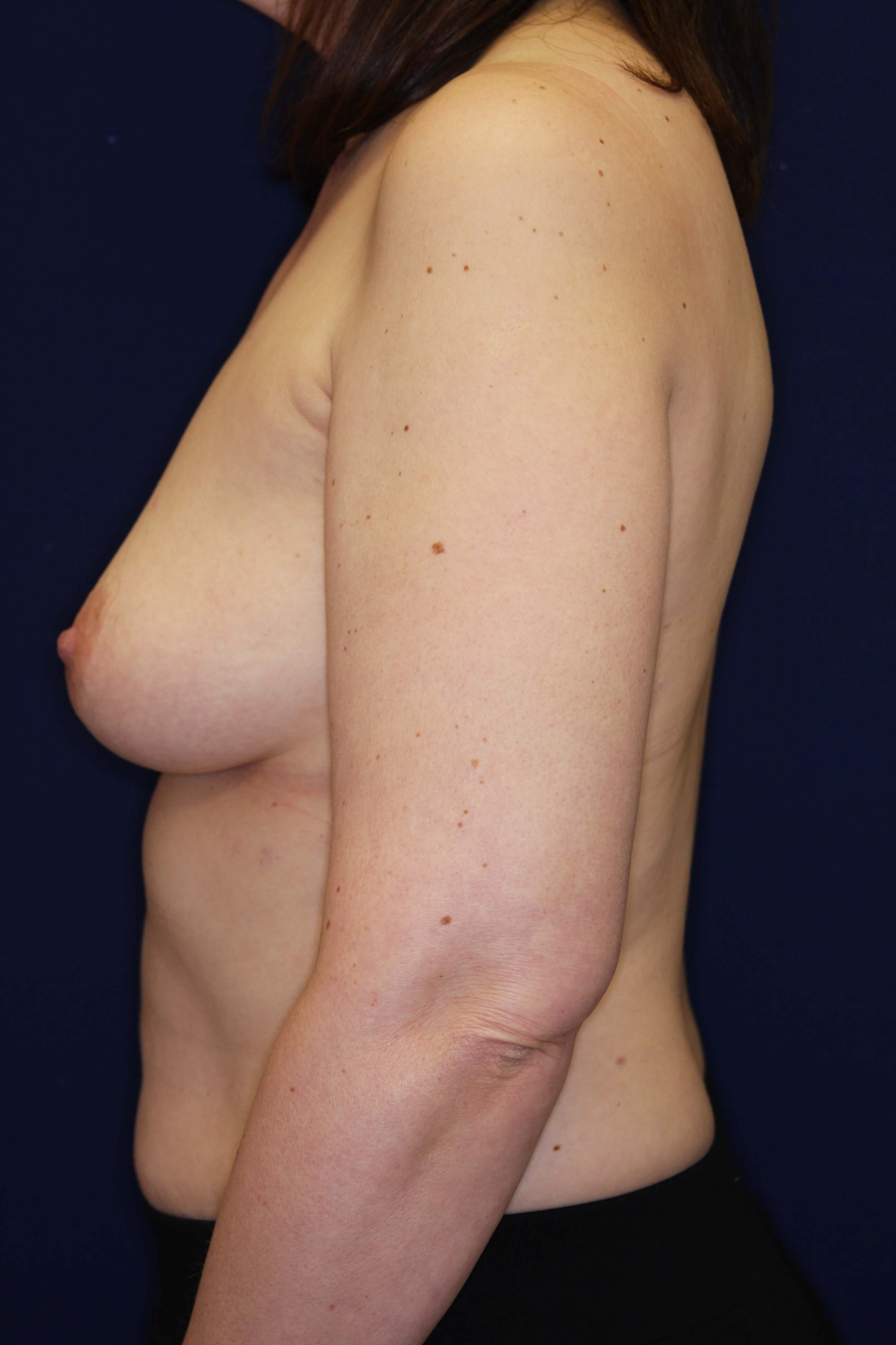 Expander Breast Reconstruction Before