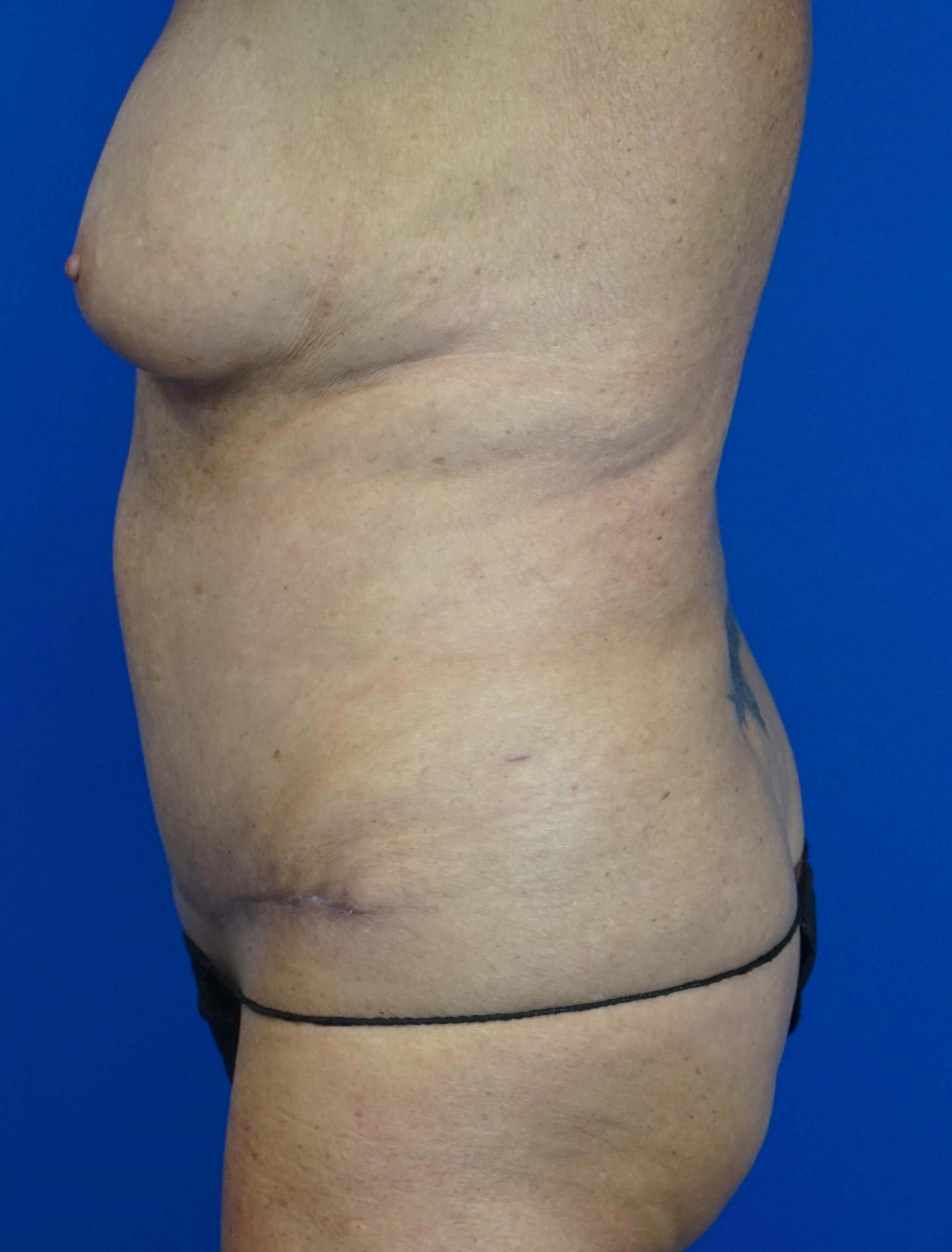 Tummy Tuck in a 64 year-old 6 weeks postop
