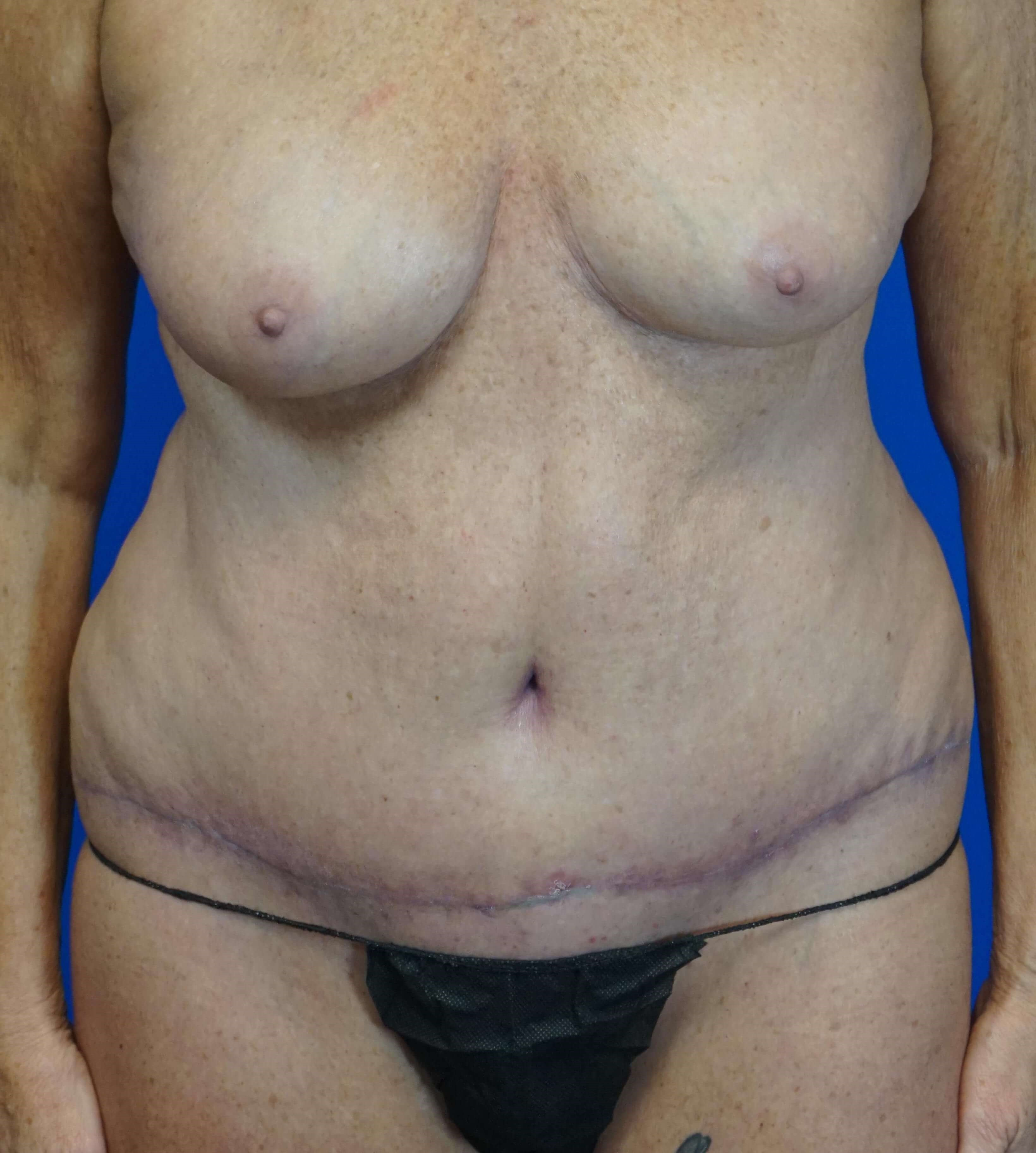 Tummy Tuck in 64 year-old 6 weeks postop