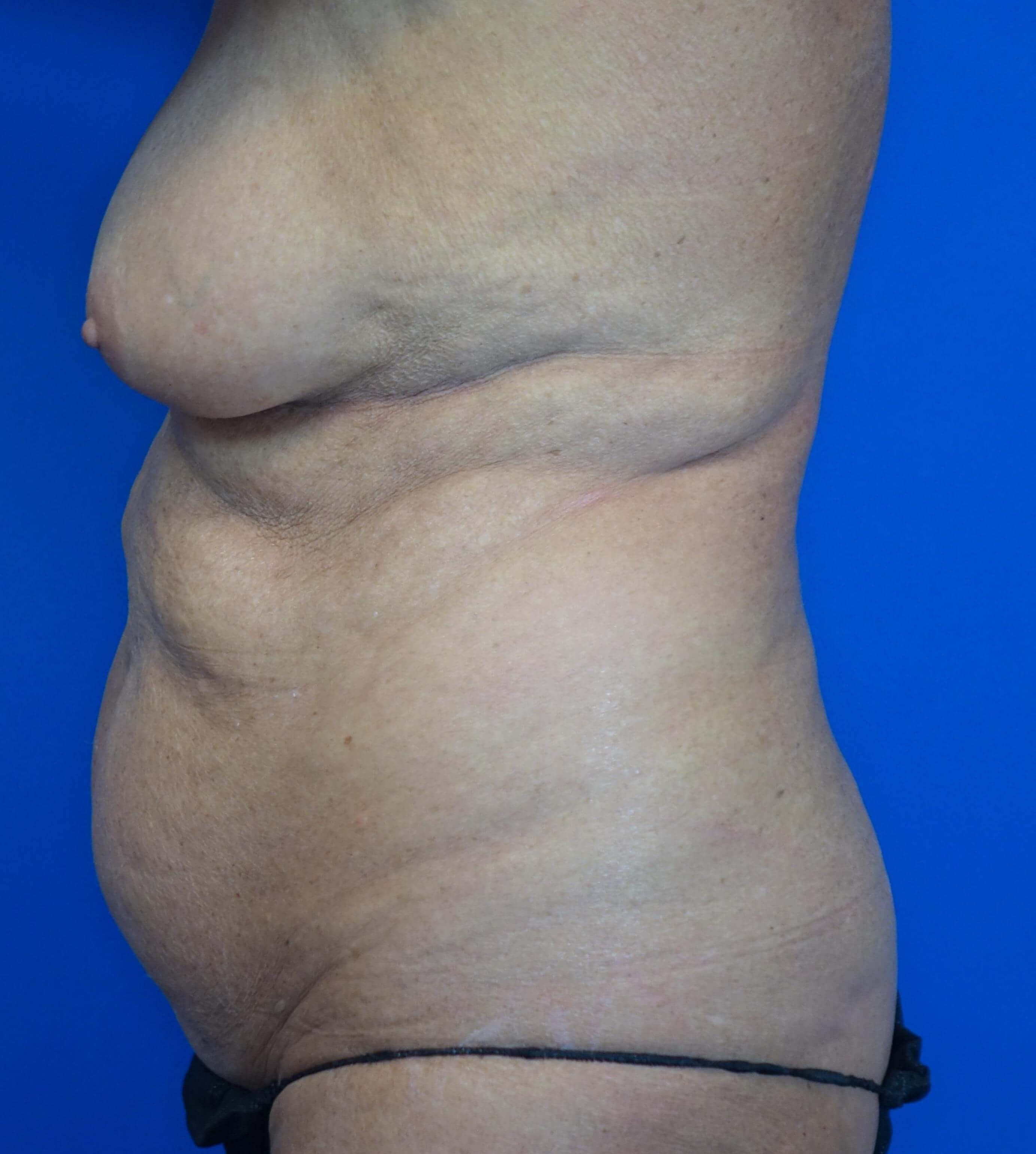 Tummy Tuck in a 64 year-old Before