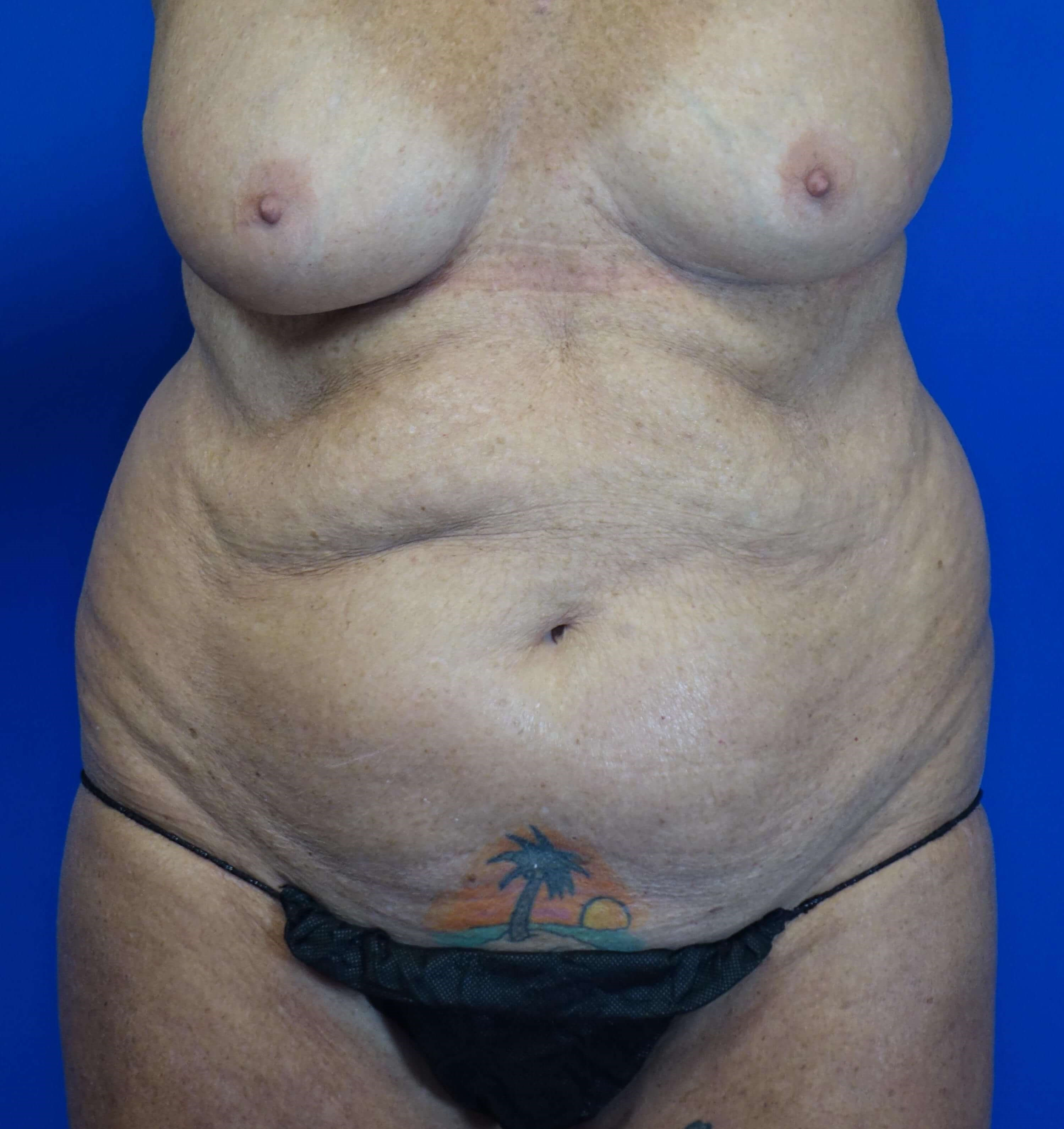 Tummy Tuck in 64 year-old Before