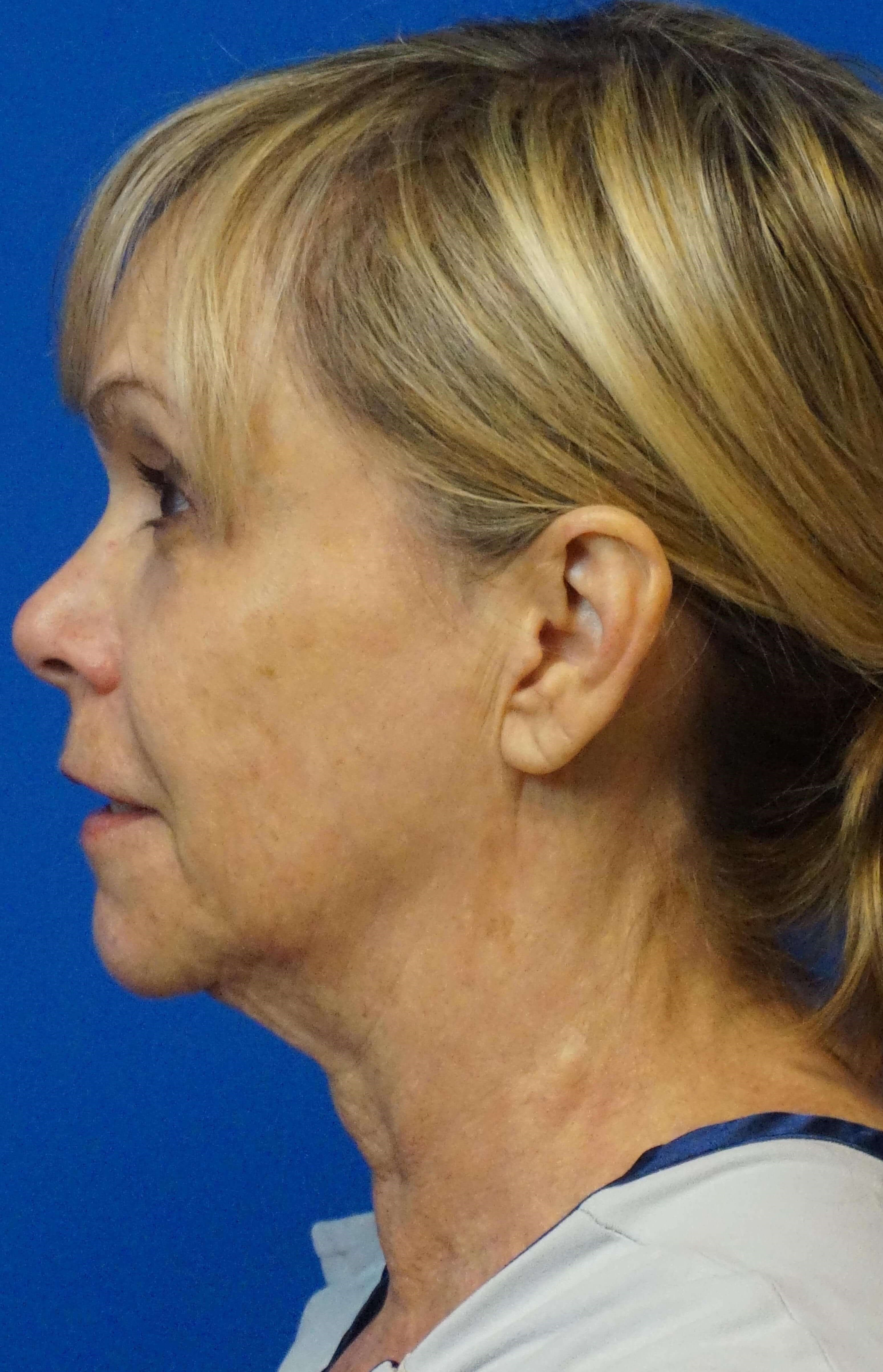 Short Scar Face and Neck Lift Before