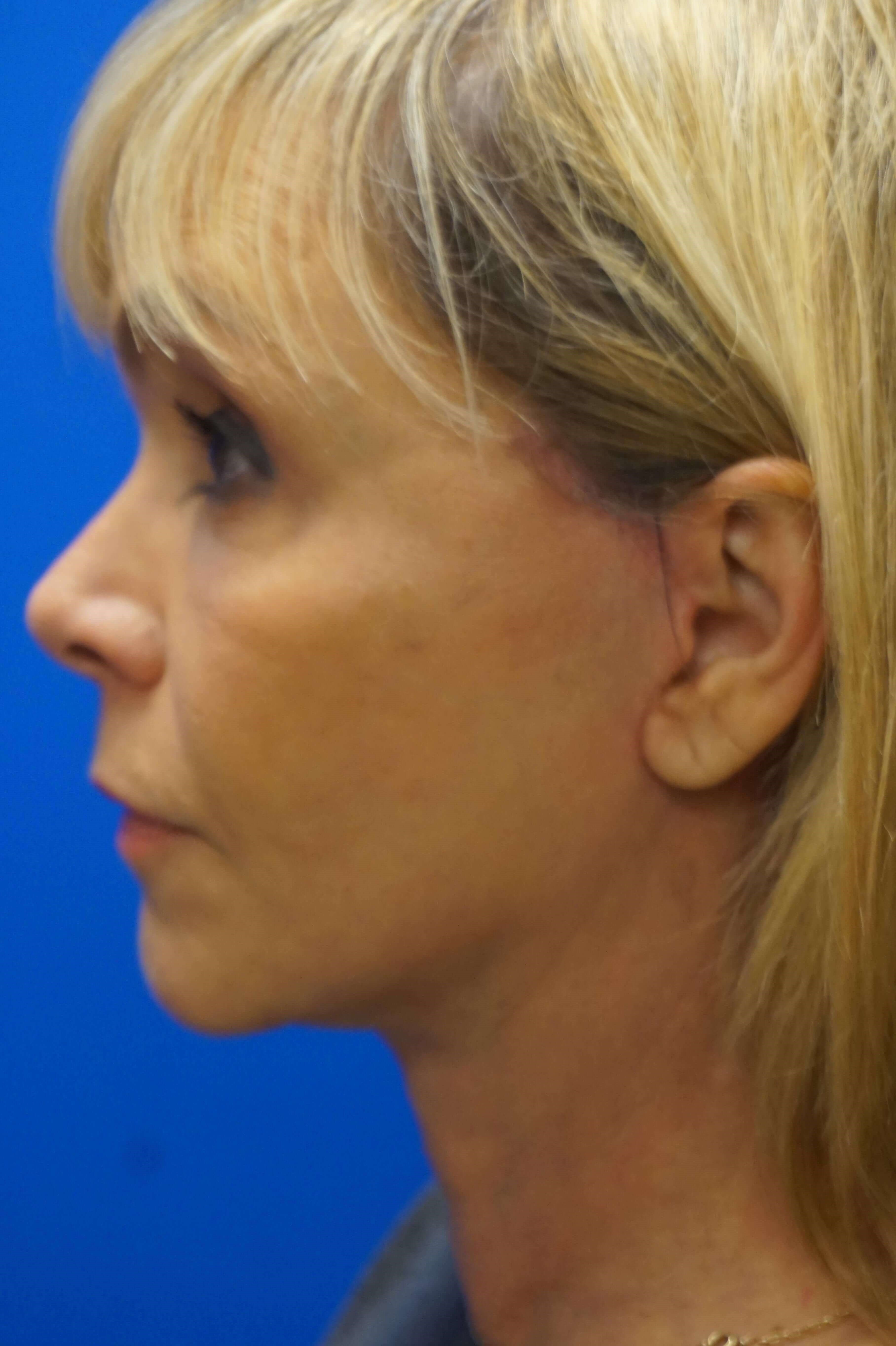 Short Scar Face and Neck Lift 2 months postop