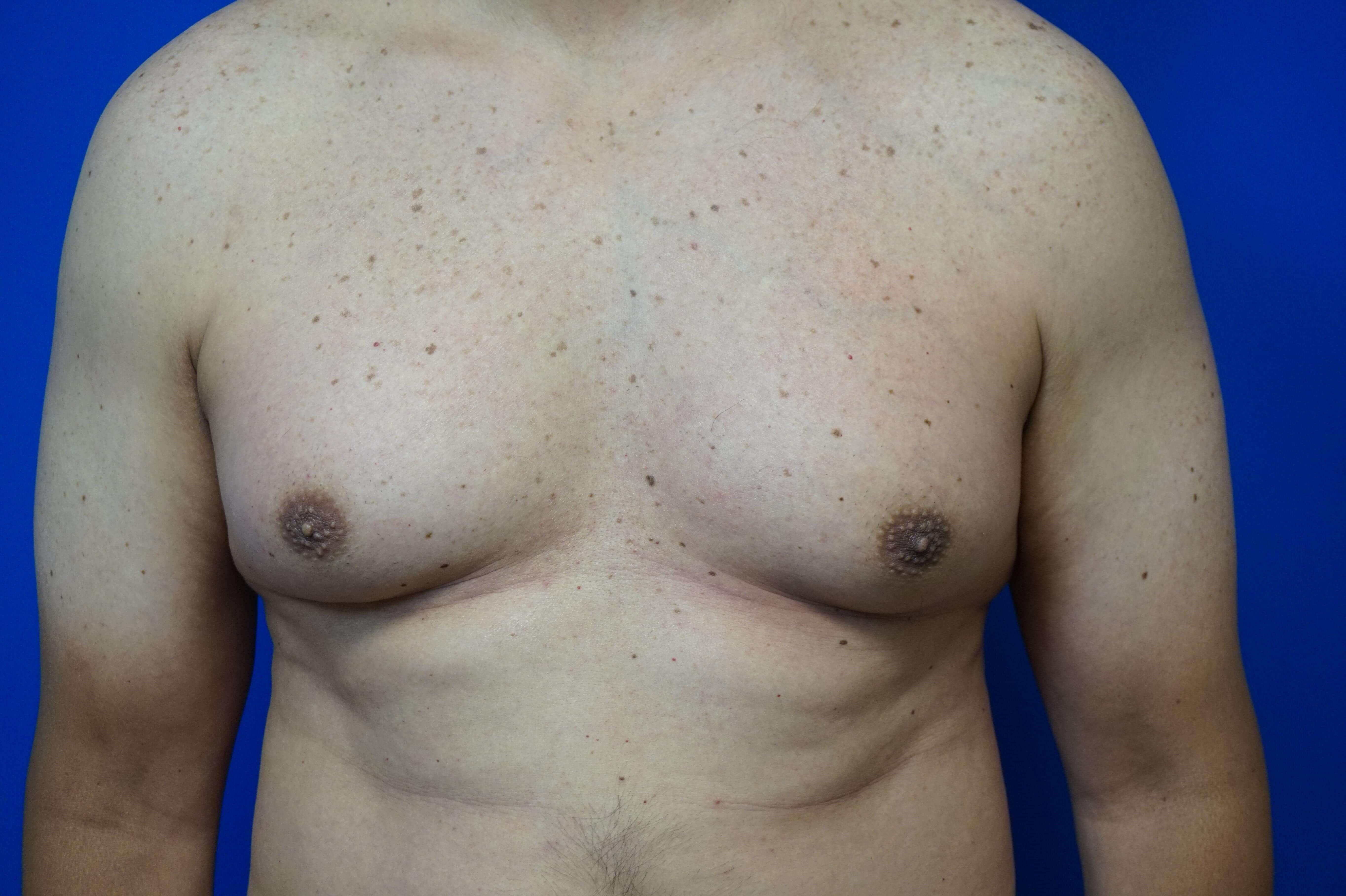 Treatment of Gynecomastia Before