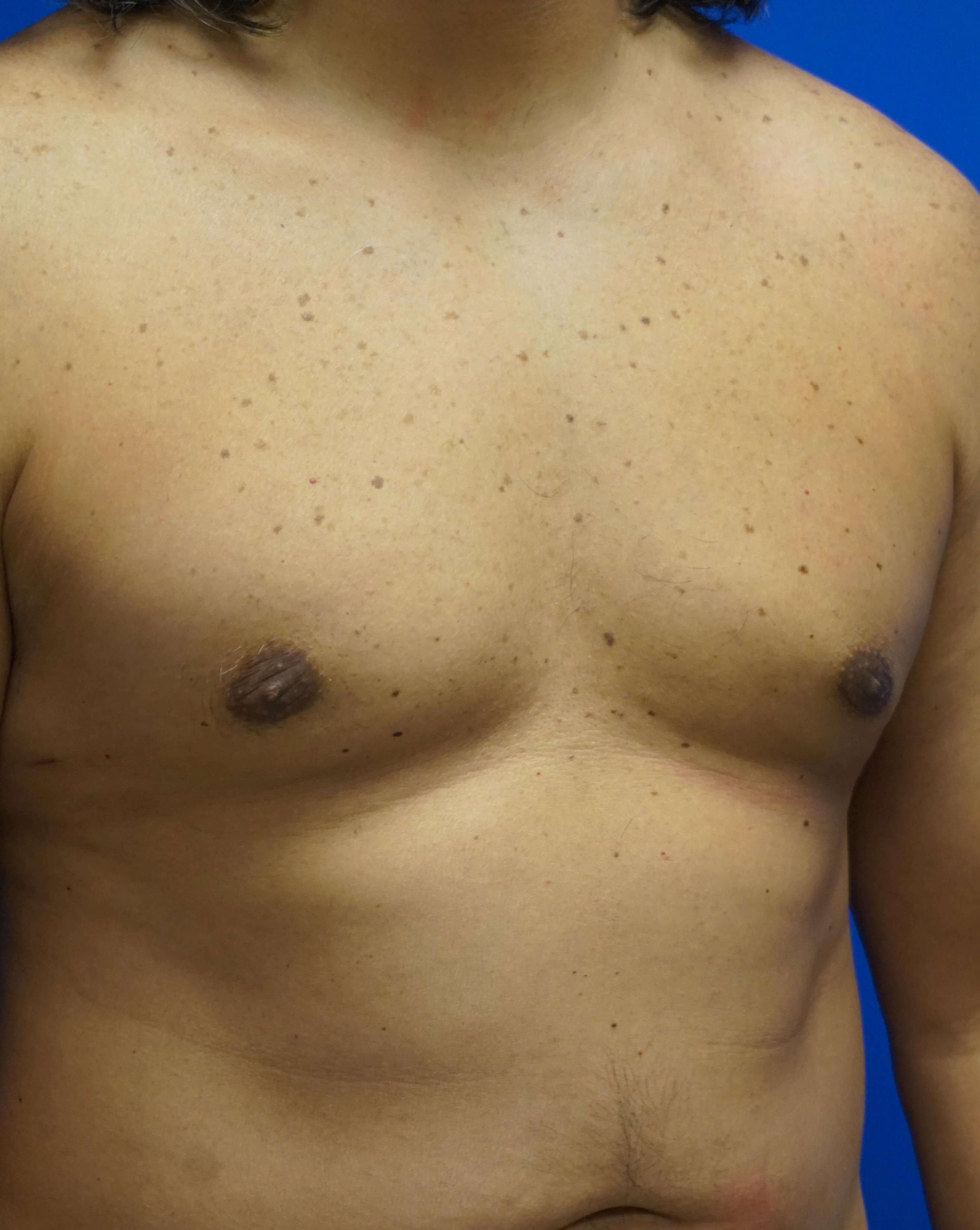 Treatment of Gynecomastia 3 months postop