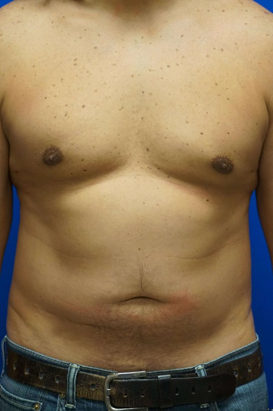 Treatment of Gynecomastia 3 months