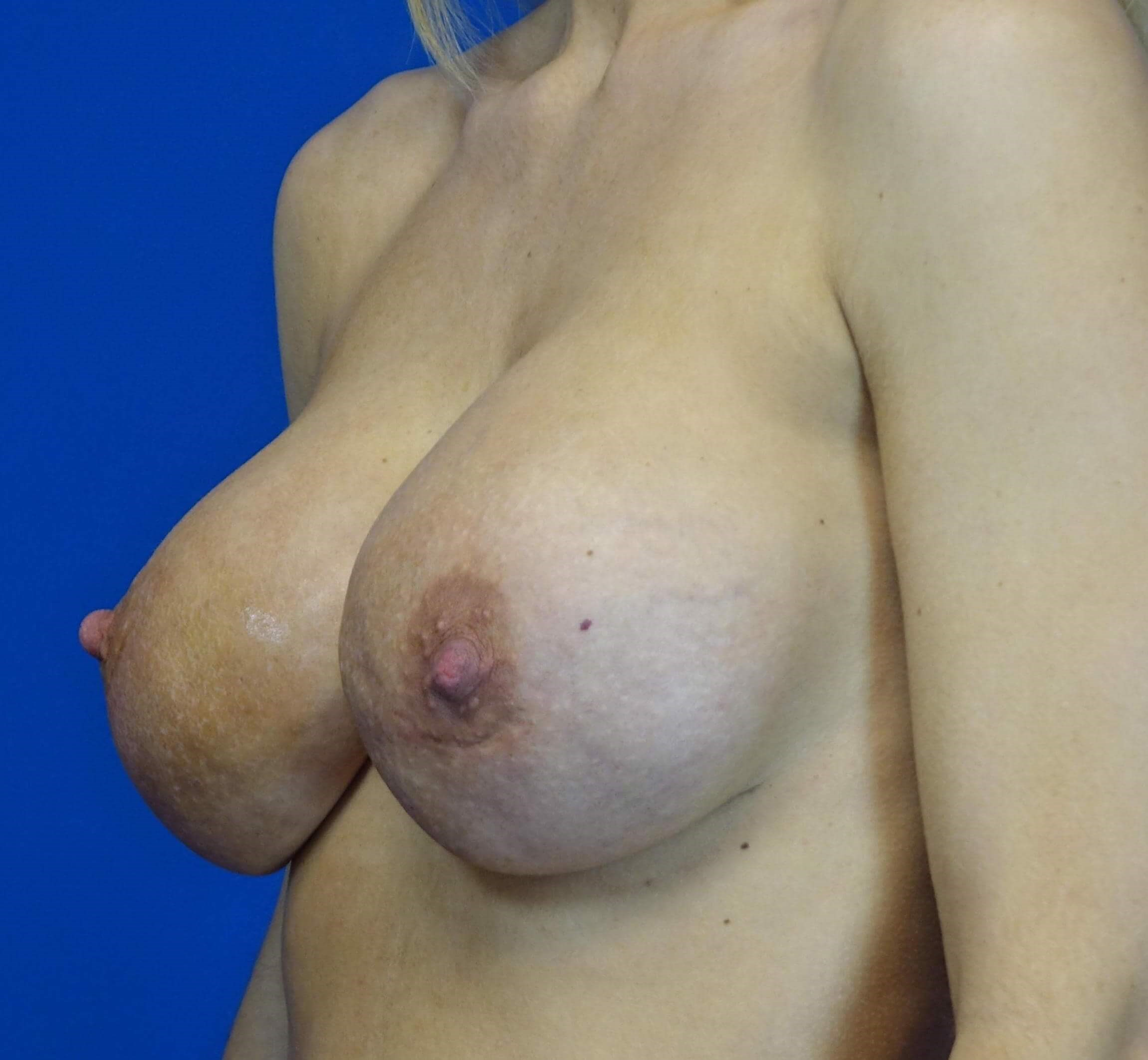 Breast Revision with GalaFlex Before