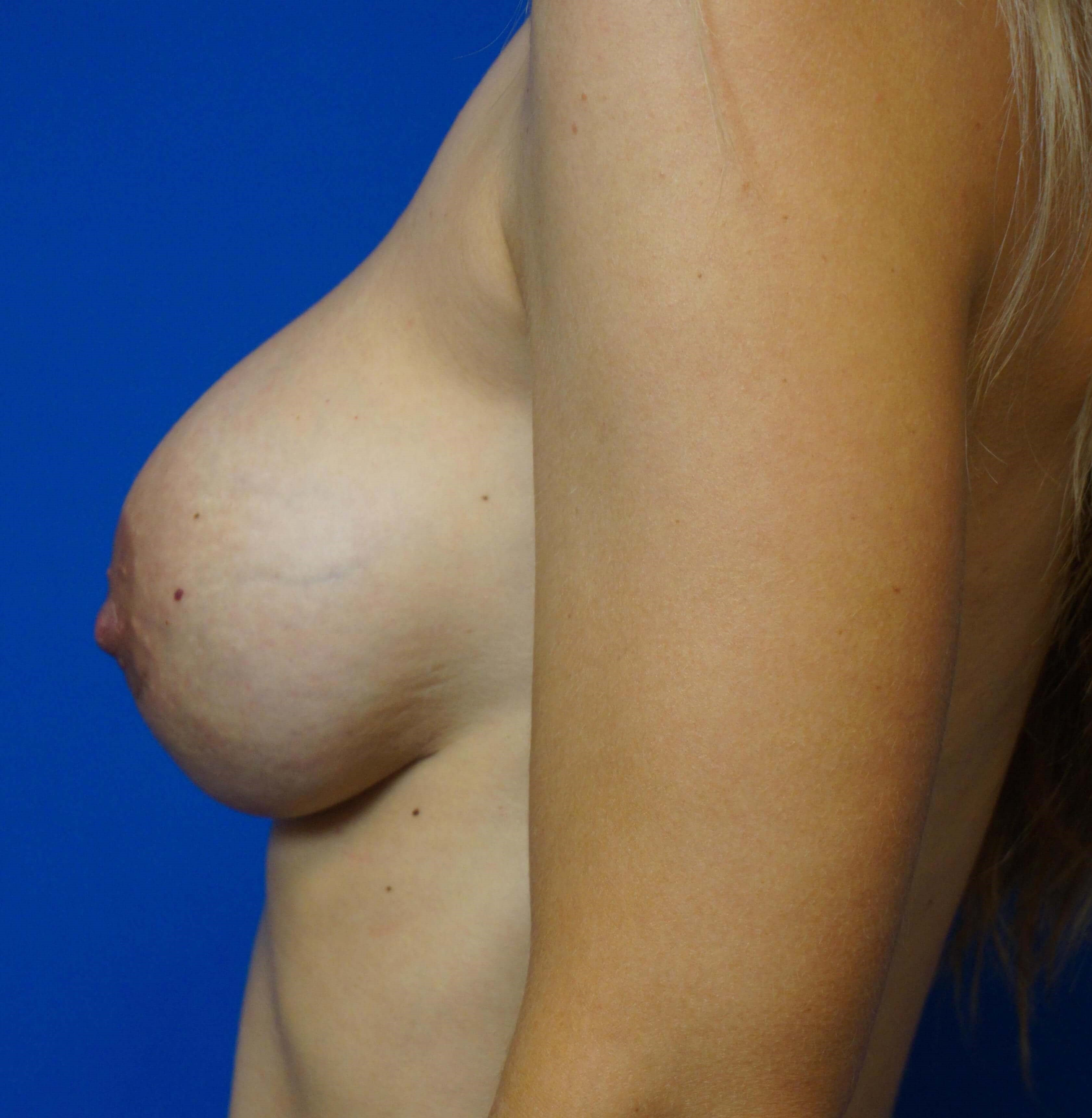 Breast Revision with GalaFlex 6 months postop