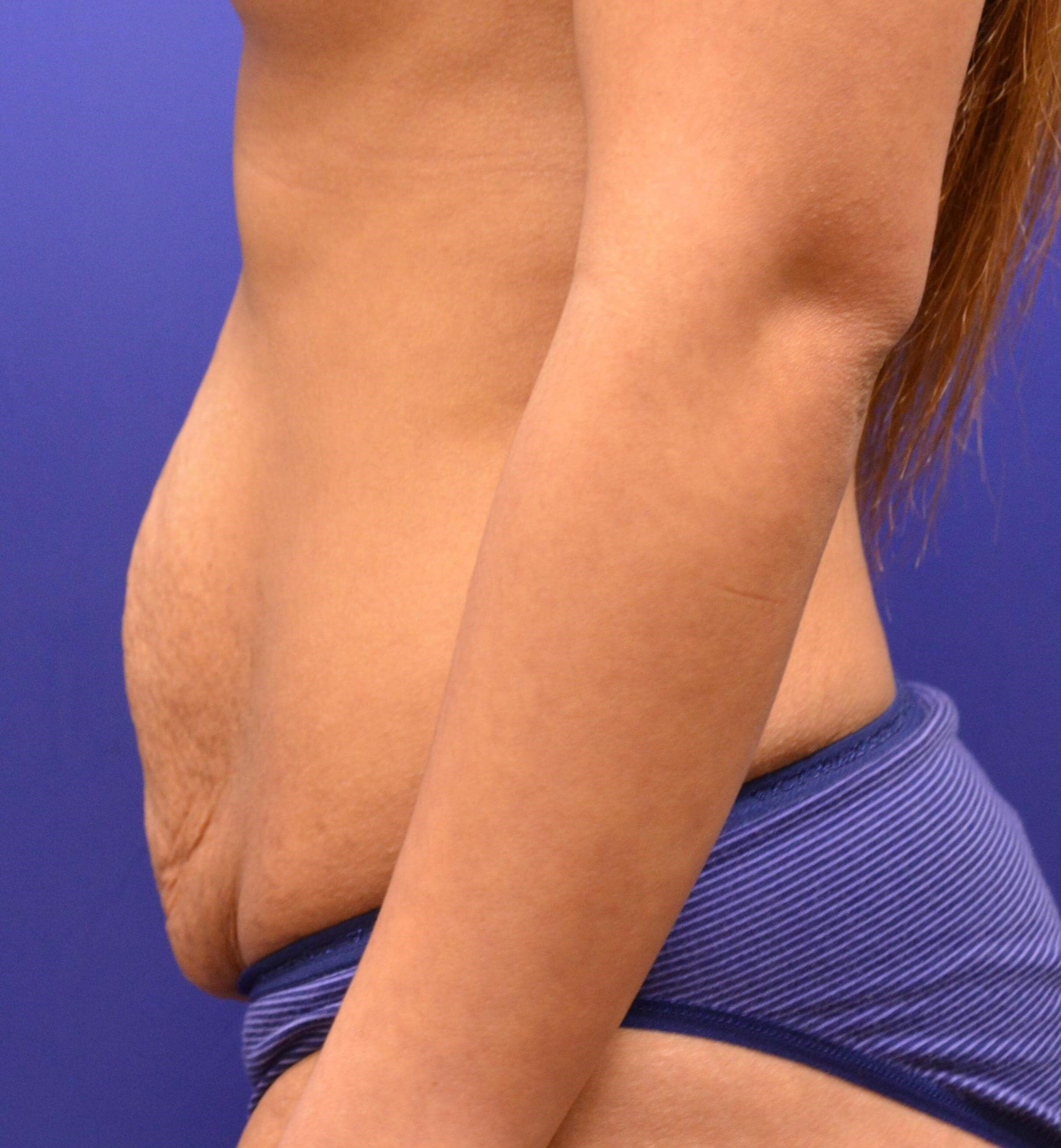 Tummy Tuck/Diastasis Repair Before