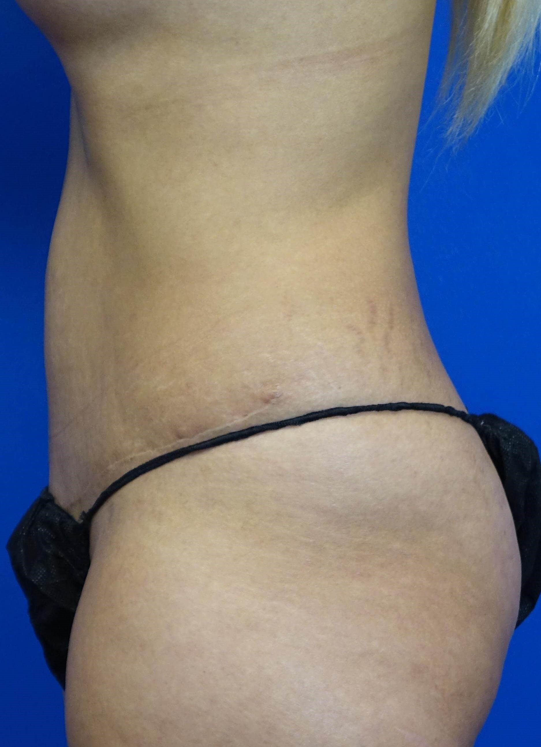 Tummy Tuck/Diastasis Repair 1 year after