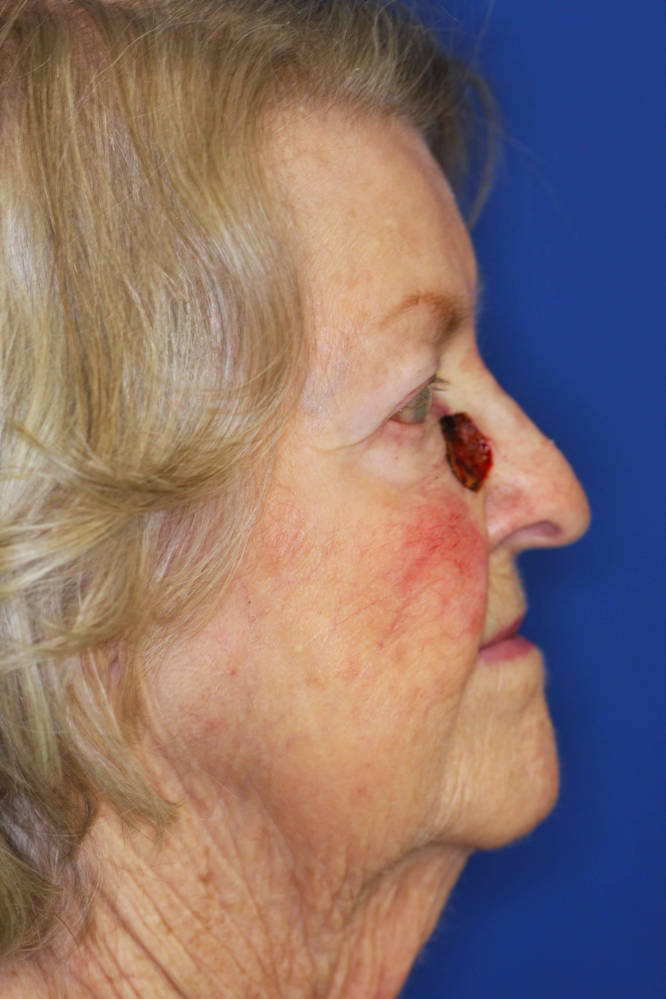 Cheek Reconstruct after Mohs Before