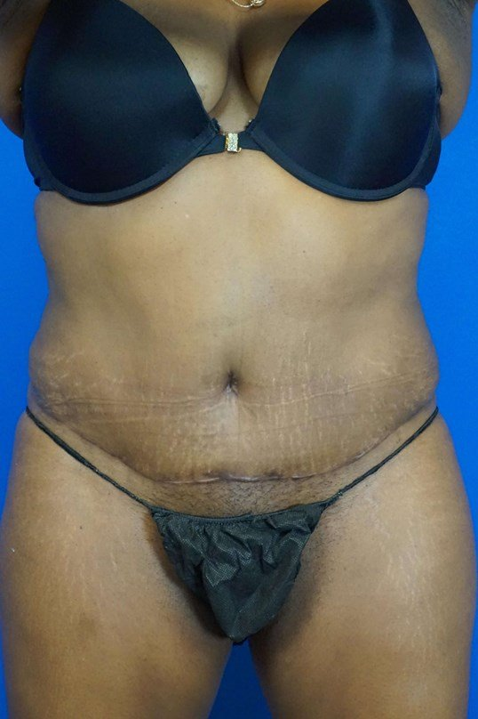 Tummy Tuck in Downers Grove,IL 6 months postop